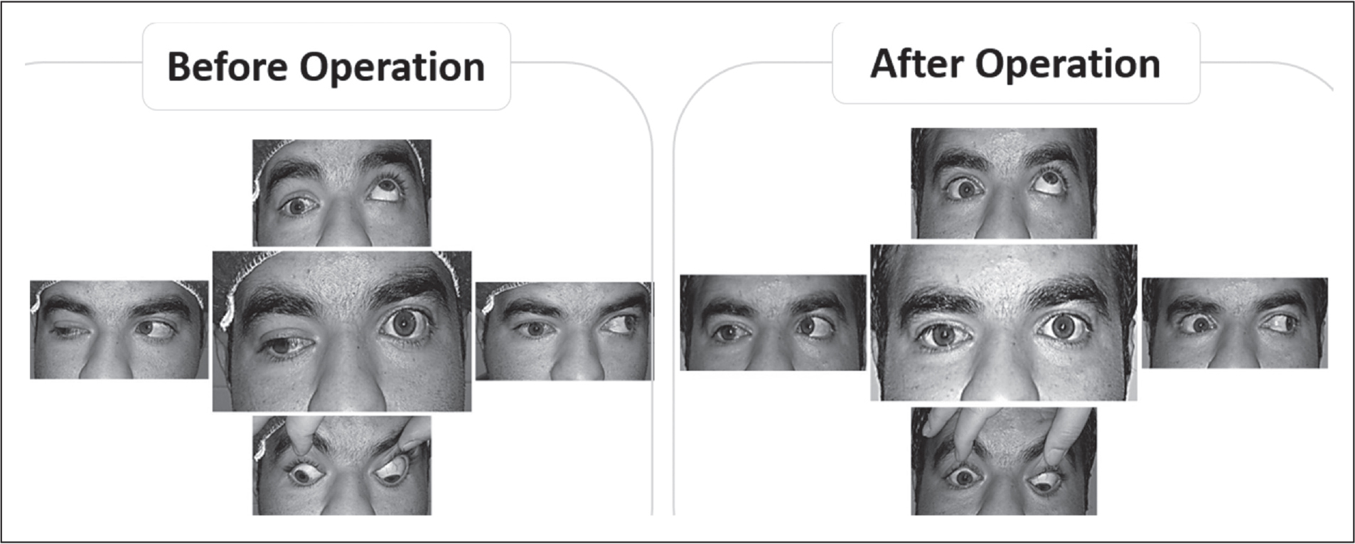 Ocular primary position and motility in patient 1 before and after surgery.