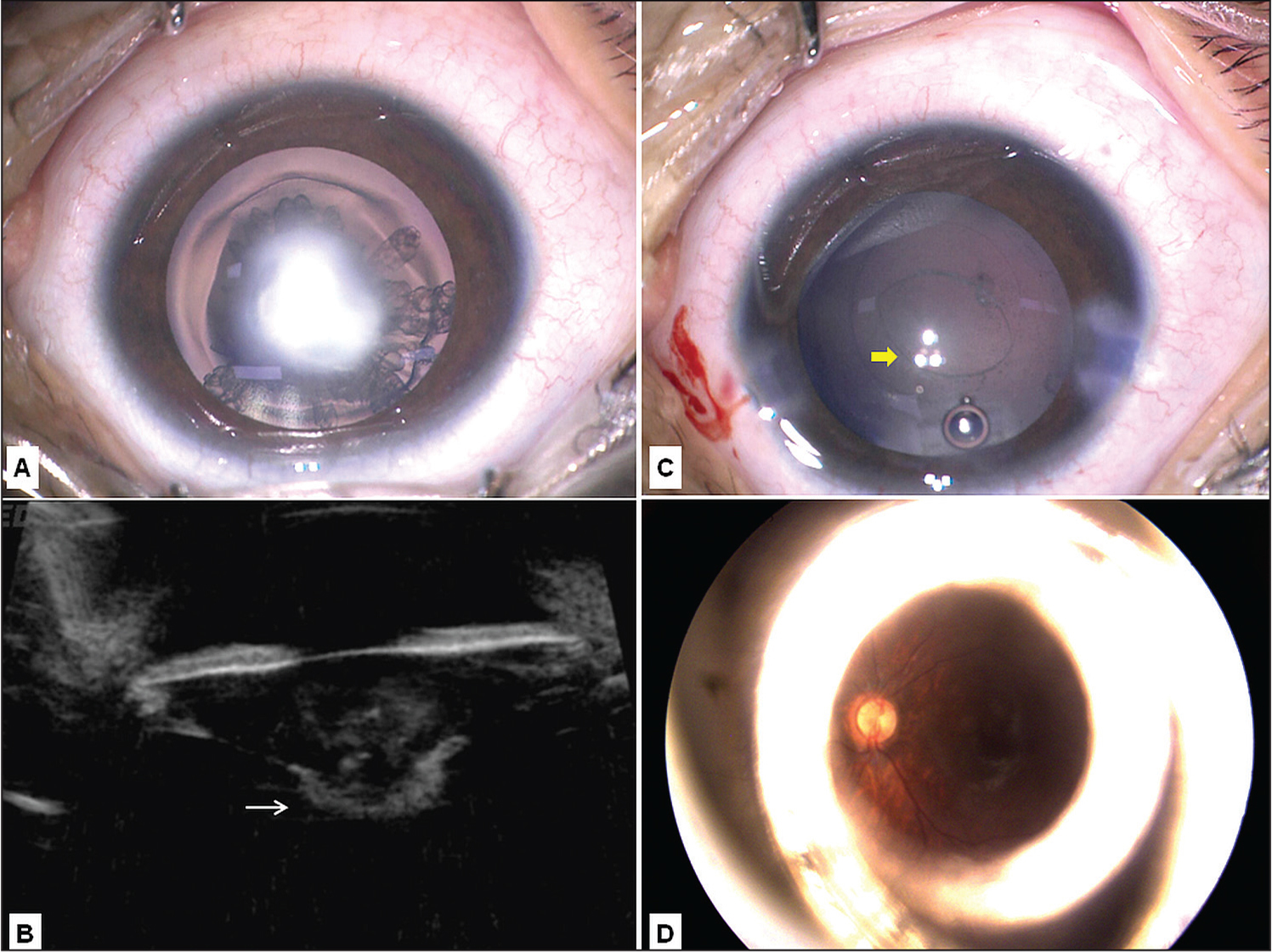 Imaging of case 2. (A) Intraoperative photograph of the left eye (surgeon's view) shows a dense central cataract with a fine lamellar component. (B) Ultrasound biomicroscopy shows a central posterior capsular defect (white arrow) with herniation of lens matter into the anterior vitreous. (C) Following bimanual aspiration, a central oval posterior capsular defect (yellow arrow) can be seen. (D) RetCam (Clarity Medical Systems, Inc., Pleasanton, CA) image at final follow-up shows a clear visual axis, normal posterior pole, and bright reflex from the edge of the intraocular lens.