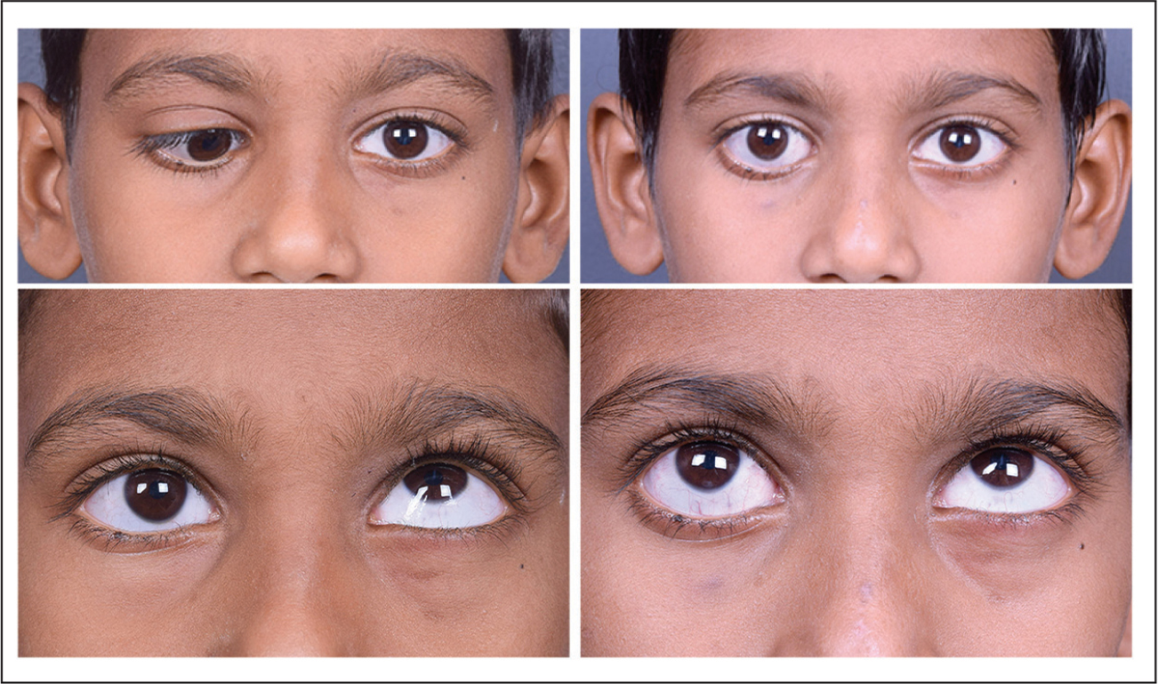 Patient 1 with monocular elevation deficit. (Top left) The patient has significant hypotropia and esotropia in the primary position preoperatively. (Top right) At 7 months after lateral rectus transposition with Foster's augmentation and medial rectus recession, the patient shows significant improvement in both the horizontal and vertical deviation. (Bottom left) A −3 limitation of elevation is seen preoperatively in primary up gaze. (Bottom right) At 7 months postoperatively, the limitation of elevation has reduced to −1.