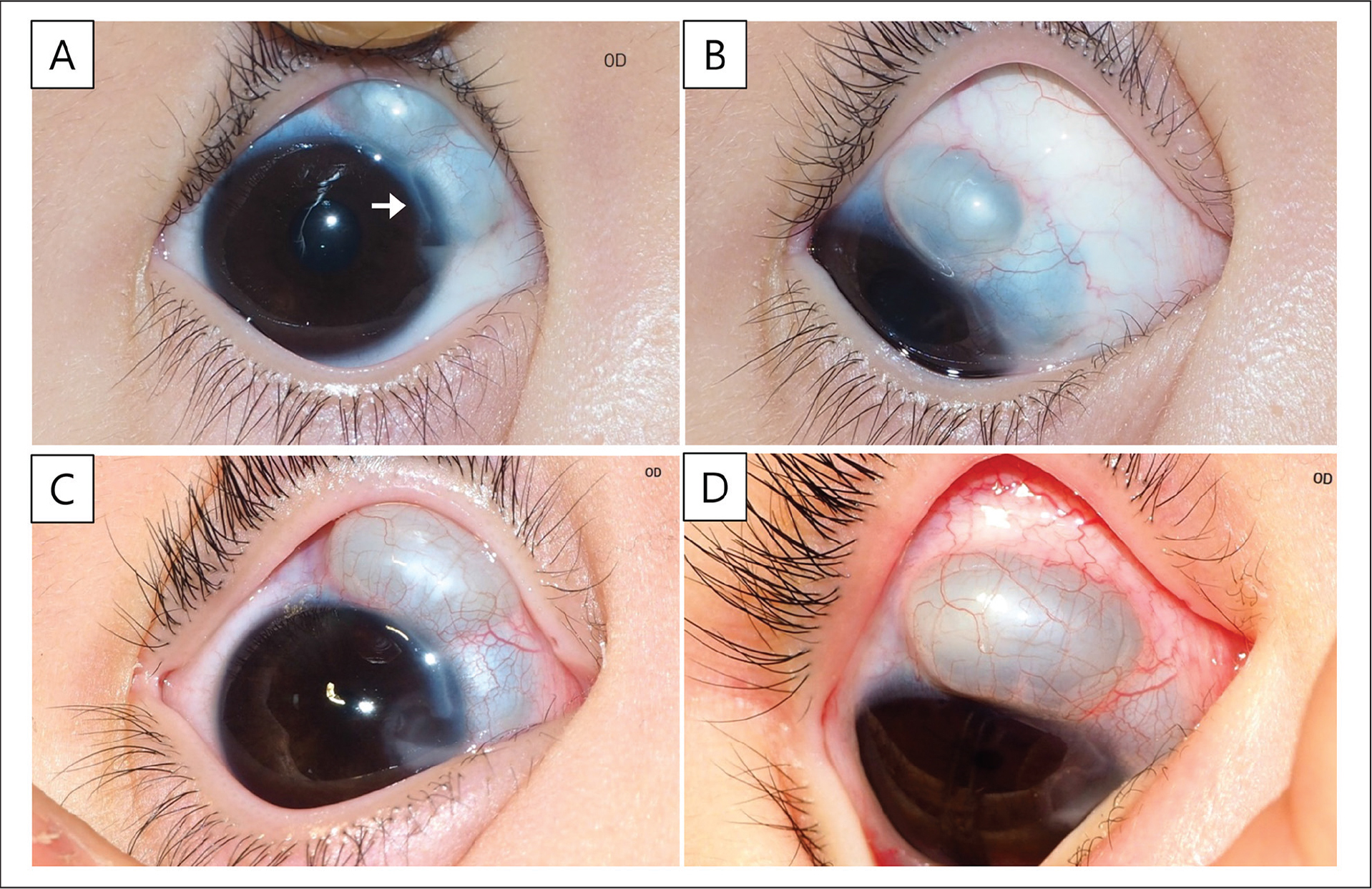 (A and B) Anterior segment photography at presentation. Scleral cystic mass and scleromalacia were observed at the superonasal limbal sclera. Intracorneal cyst with fluid collection was also present at the nasal cornea with an intrastromal connecting tract between scleral and corneal cysts (white arrow). (C and D) Anterior segment photography 9 months later. Both scleral and intracorneal cysts markedly enlarged.