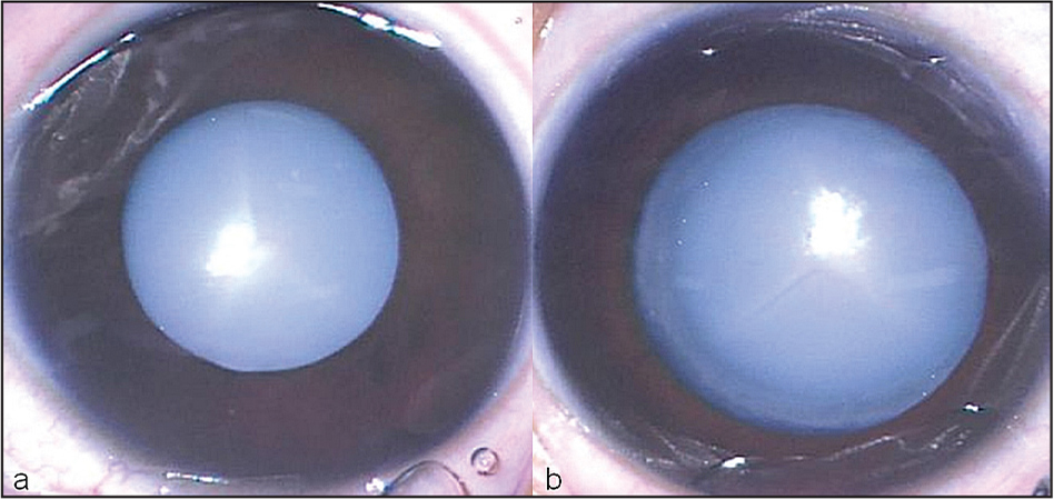 Anterior segment photographs of the (A) right and (B) left eye show total cataract in both eyes noted at a visit 6 weeks after intravitreal bevacizumab administration.