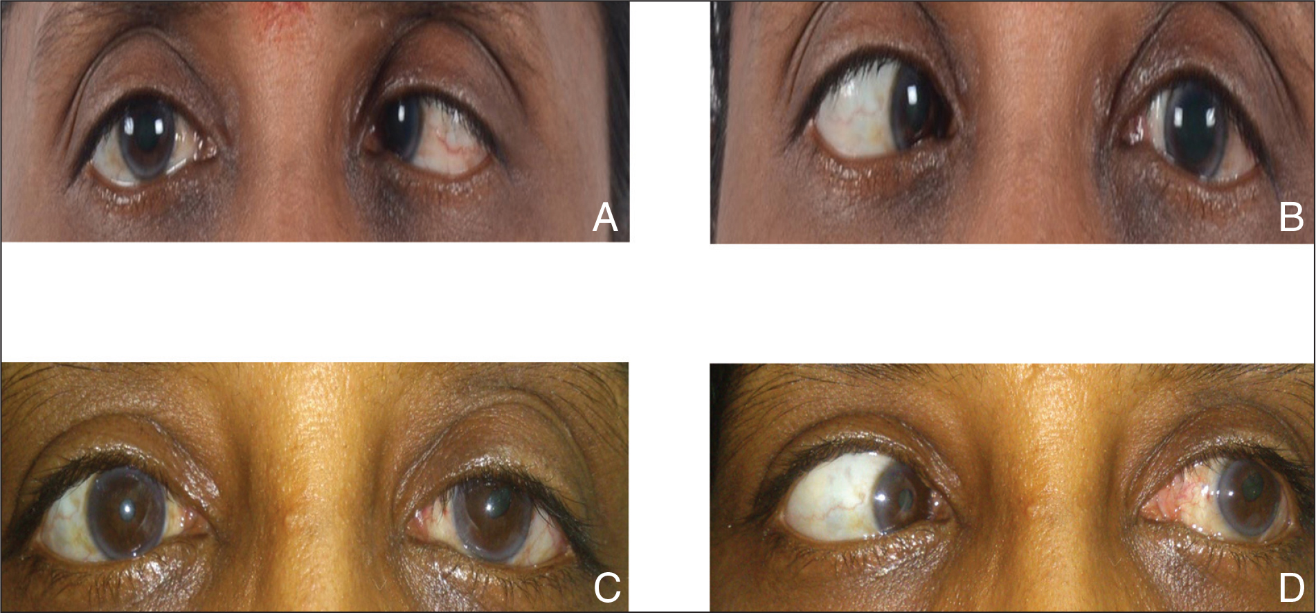 (A–B) Preoperative esotropia in primary position and grade 4 limitation of abduction in the left eye. (C–D) Postoperative improvement in primary gaze alignment and abduction in the left eye.