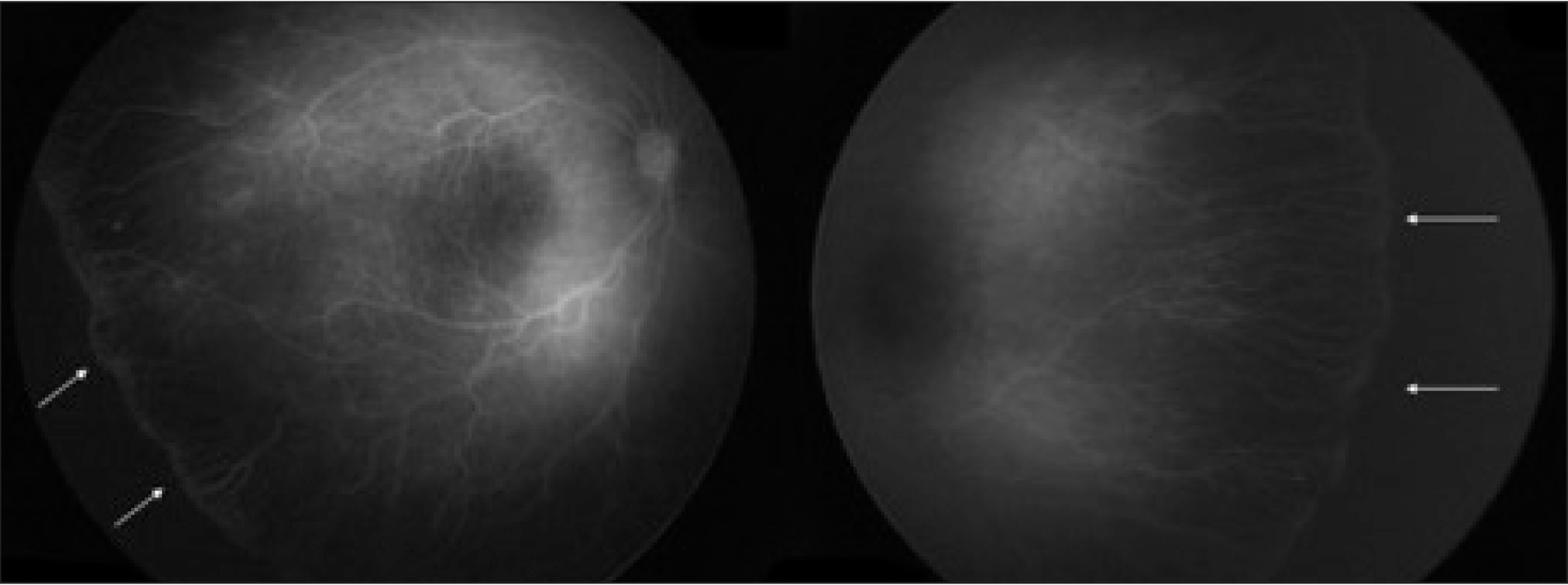 Postconceptual age of 46 weeks: stage 2 retinopathy of prematurity with 12 clock hours of involvement in zone II in both eyes.