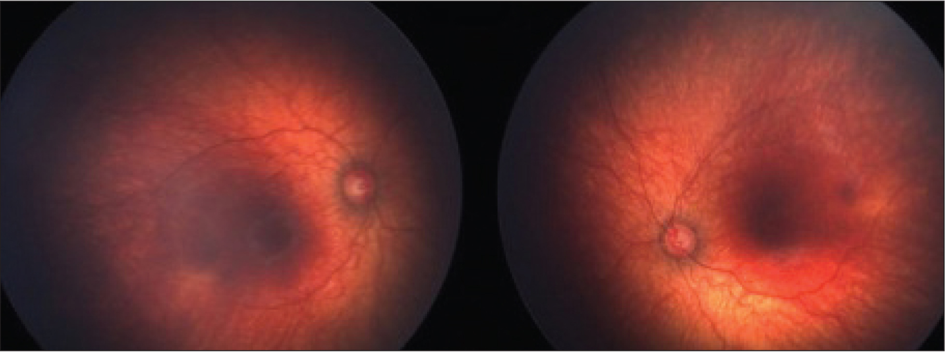 Postconceptual age of 62 weeks: regression of retinopathy of prematurity with full vascularization.