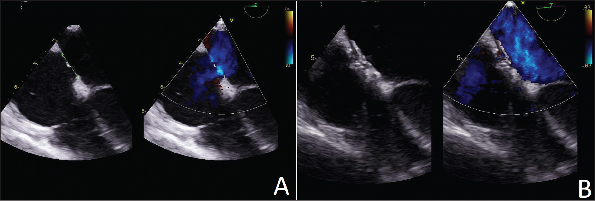 (A) Transesophageal echocardiogram displays a right-to left shunt through the atrial septal defect. (B) Transesophageal echocardiogram after percutaneous closure of the atrial septal defect.