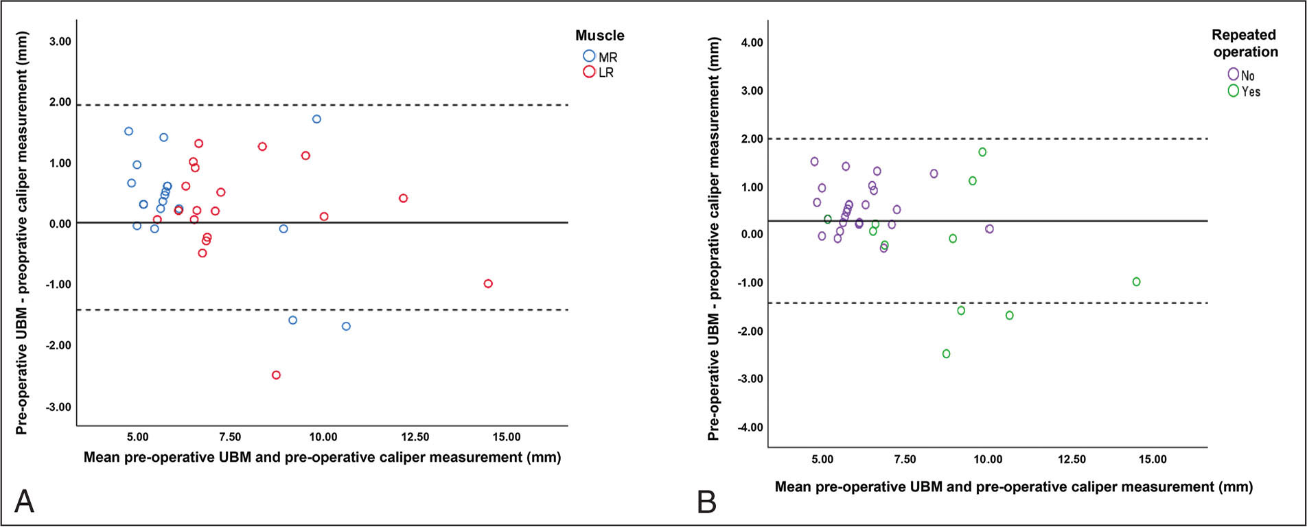 Bland–Altman plots showing the difference between preoperative ultrasound biomicroscopy (UBM) and preoperative caliper measurements plotted against the average of the two measurements. The dashed lines represent the 95% confidence interval (CI). (A) Color sub-classification according to medial rectus and lateral rectus muscles and (B) color subclassification according to the naive muscle group versus the reoperation group. The three dots outside the CI represent previously operated muscles. MR = medial rectus; LR = lateral rectus