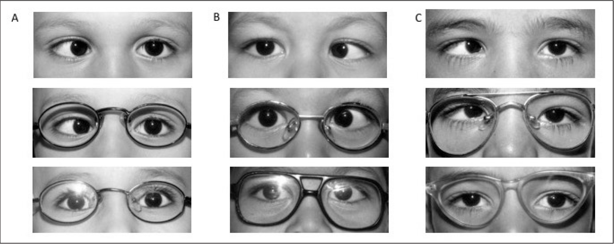 (A) (Top) Postoperative orthotropia. (Middle) Partially accommodative esotropia of 70 prism dipoters (PD) (sc) and 50 PD (cc). (Bottom) Orthotropia (cc) after surgery for a target angle of 60 PD (5-mm bimedial muscle recession and 7-mm right lateral rectus muscle resection). (B) (Top) Postoperative residual esotropia. (Middle) Partially accommodative esotropia of 54 PD (sc) and 25 PD (cc). (Bottom) Residual esotropia of 18 PD (cc) after surgery for a target angle of 39.5 PD (5.5-mm bimedial muscle recession). (C) (Top) Postoperative consecutive exotropia. (Middle) Partially accommodative esotropia of 59 PD (sc) and 30 PD (cc). (Bottom) Consecutive exotropia of 14 PD (cc) after surgery for a target angle of 44.5 PD (6-mm bimedial muscle recession). sc = without spectacles; cc = with spectacles