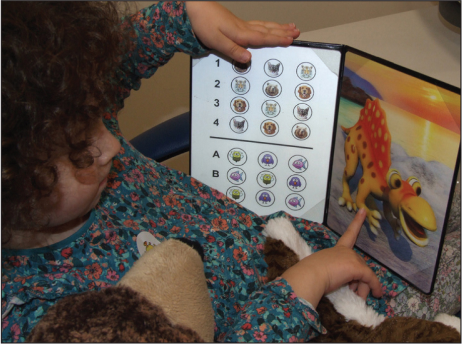 A young girl tested with the Bernell Evaluation of Stereopsis Test (BEST) (Bernell Corporation, Mishawaka, IN).