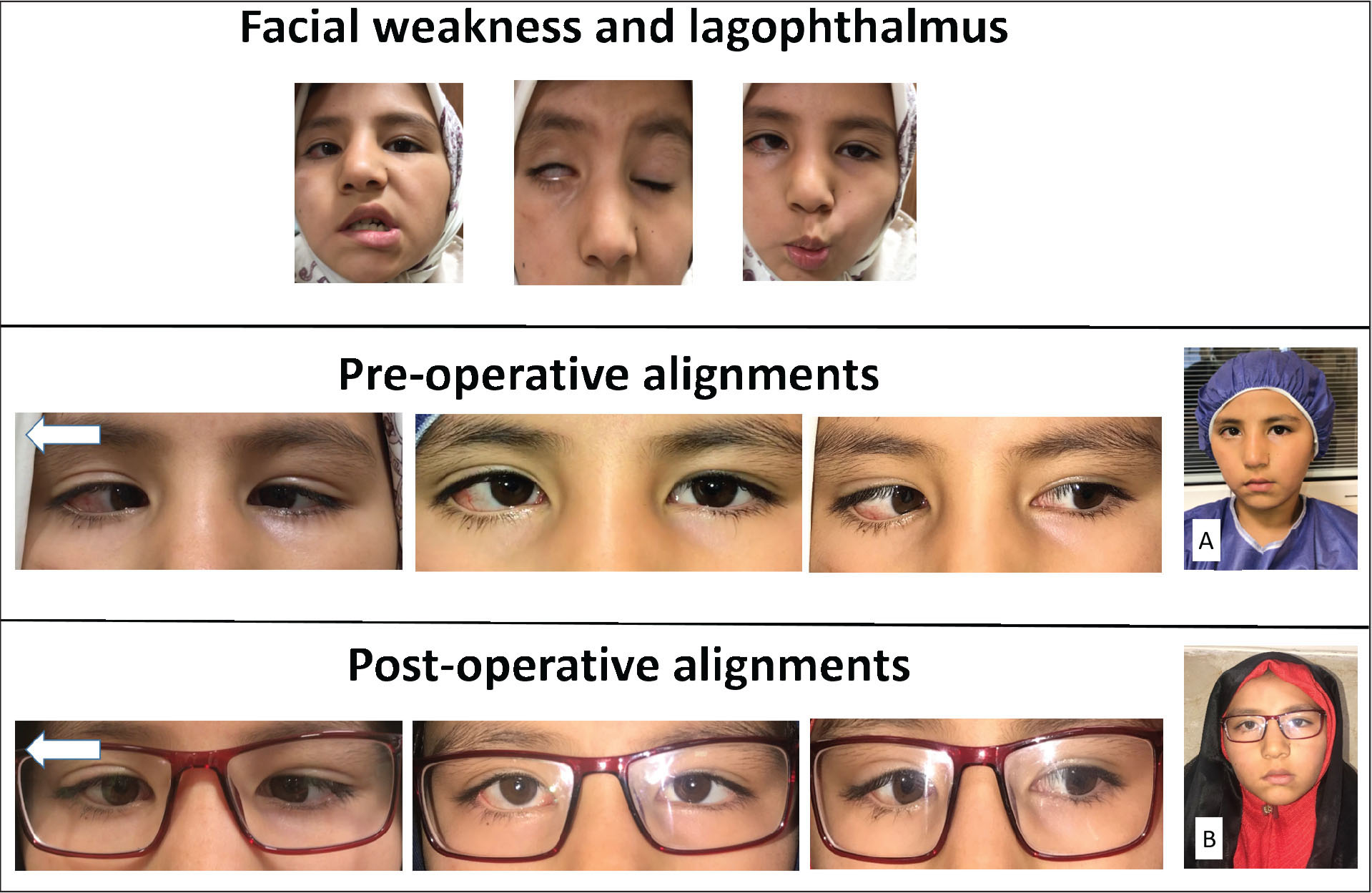 (Top row) Facial weakness and lagophthalmos. (Middle row) Preoperative gaze position and convergence movement on attempted right gaze, showing (A) preoperative right face turn. (Bottom row) Postoperative gaze position and reduced convergence movement on attempted right gaze, showing (B) improved face turn to the right side postoperatively.