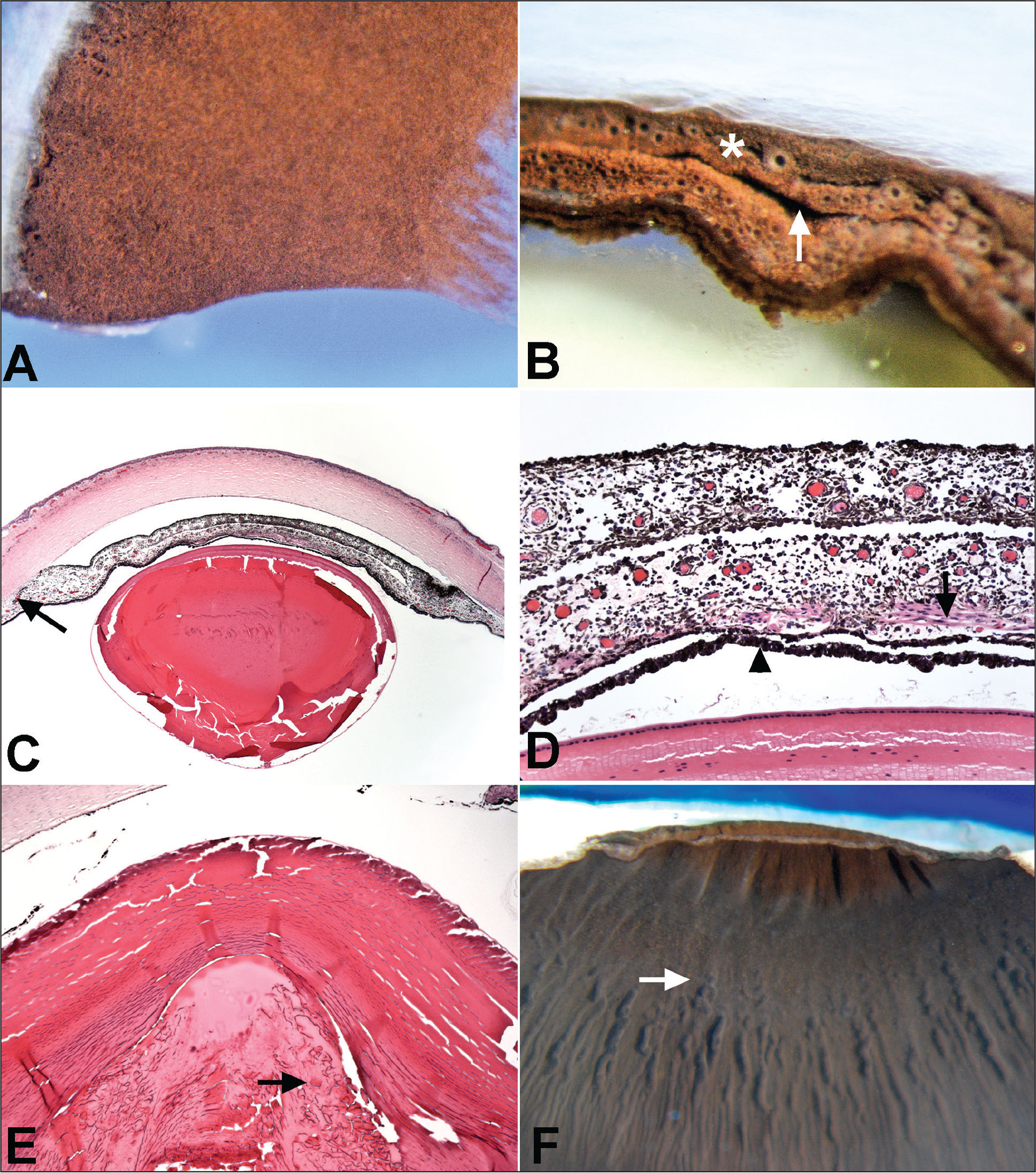 Gross and microscopic features of the post-mortem eyes. (A) The anterior surface of the iris is smooth and lacks normal architectural landmarks, including crypts, contraction furrows, and collarette. (B) A cleft (arrow) separates the two layers of the iris stroma. The anterior layer of the iris stroma (asterisk) lacks the iris pigment epithelium. (C) Anterior segment at a scanning magnification manifests the incompletely cleaved anterior chamber angle with peripheral iridocorneal attachment (arrow) and a central duplication of the iris stroma (hematoxylin–eosin stain; original magnification ×5). (D) The anterior layer of the duplicated iris stroma is composed of thick-walled iris stromal blood vessels surrounded by the normal iris stromal constituents and lacks the smooth muscle and iris pigment epithelium. A cleft separates the anterior duplicated iris stroma from the underlying iris tissue with smooth muscle (arrow) and iris pigment epithelial bilayer (arrowhead) (hematoxylin–eosin stain; original magnification ×50). (E) The crystalline lens demonstrates fragmentation and liquefaction of cortical lens fibers (arrow), compatible with cataract formation (hematoxylin–eosin stain; original magnification ×25). (F) The ciliary body processes are markedly hypoplastic (arrow).