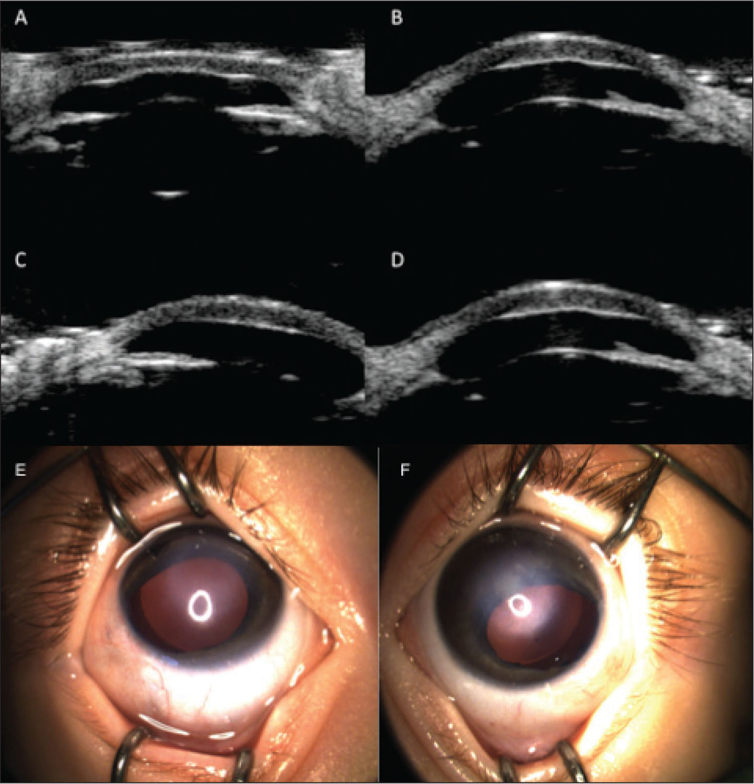 Postoperative ultrasound biomicroscopy images showing resolution of iridocorneal adhesions and decrease in central corneal thickness in the (A and B) right and (C and D) left eyes. Postoperative external photography showing clearing of central corneal opacities in the (E) right and (F) left eyes.
