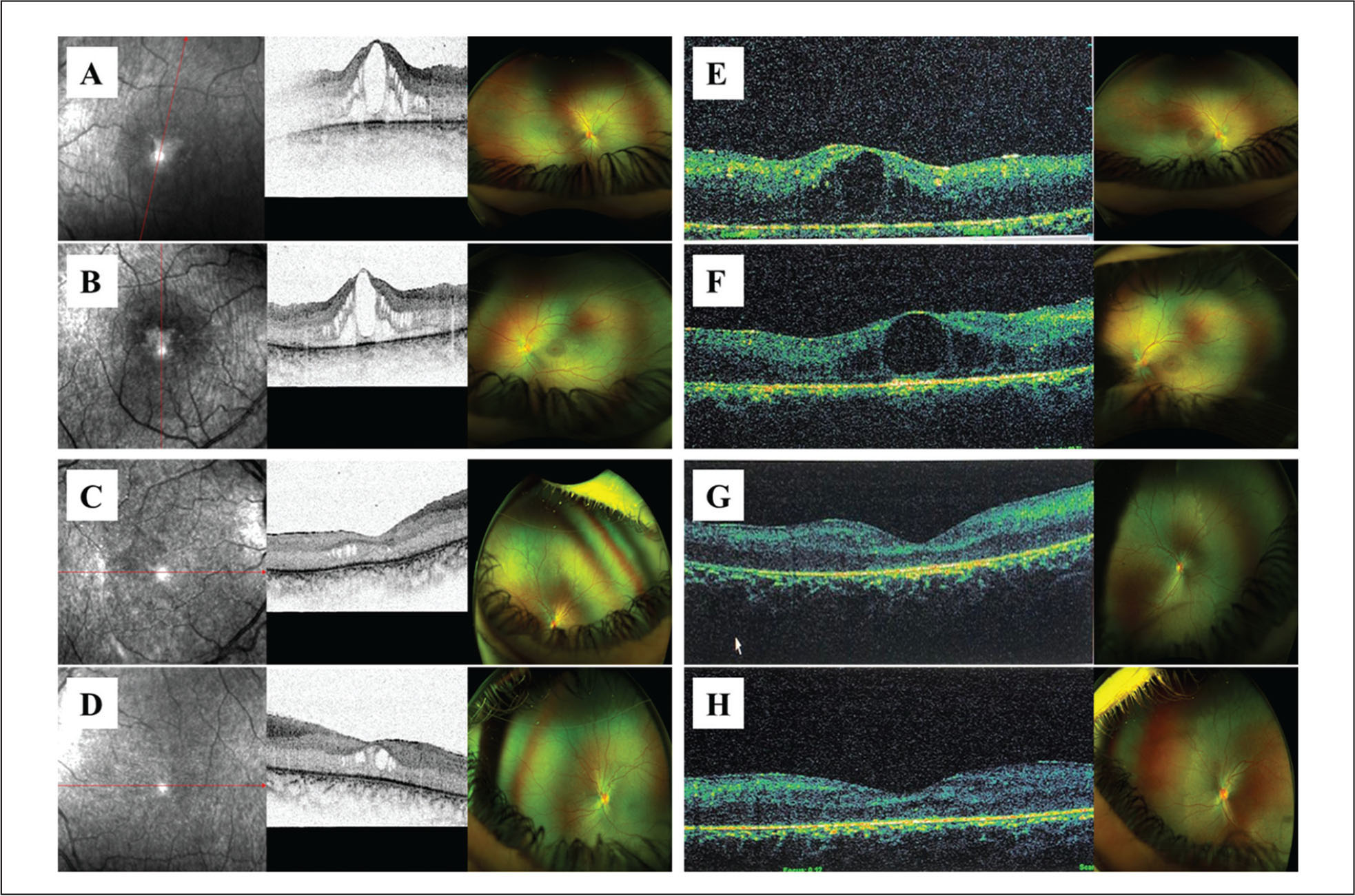Fundus examination and optical coherence tomography (OCT) at first evaluation, when the two dizygotic twins were (left side: A, B, C, and D) 3 years old and (right side: E, F, G, and H) at the 4-year follow-up examination. The boy showed macular cystoid edema in the (A) right and (B) left eyes. Fundus examination and OCT of the girl also showed macular cystoid edema in the (C) right and (D) left eyes, although less pronounced than in the boy. At the follow-up evaluation, fundus examination and OCT showed a different evolution of the disease in the twins. Indeed, edema persisted in both the (E) right and (F) left eyes of the boy, whereas the girl showed an atrophic evolution of the foveal region in both eyes (G and H, right and left eye, respectively).