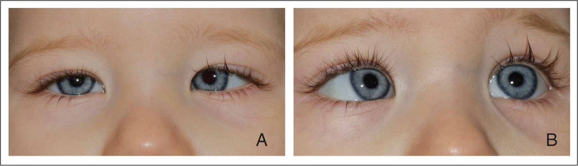 Preoperative photographs showing (A) primary gaze and (B) left gaze demonstrating a −2 abduction deficit.