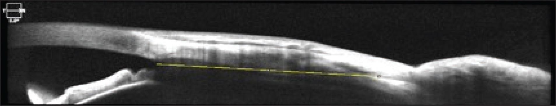 Optical coherence tomography image. The measurement is marked with a line from anterior angle to muscle insertion.