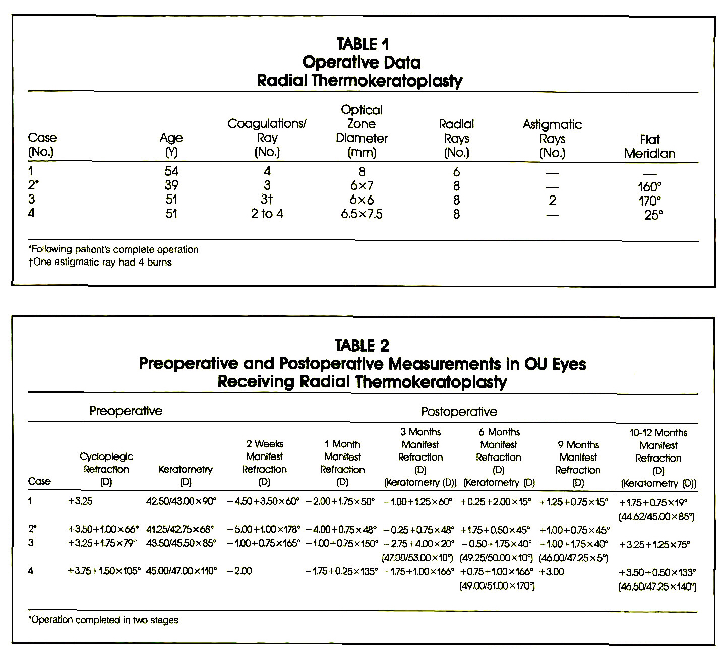 TABLE 1Operative Data Radial ThermokeratoplastyTABLE 2Preoperative and Postoperative Measurements in OU Eyes Receiving Radial Thermokeratopiasty