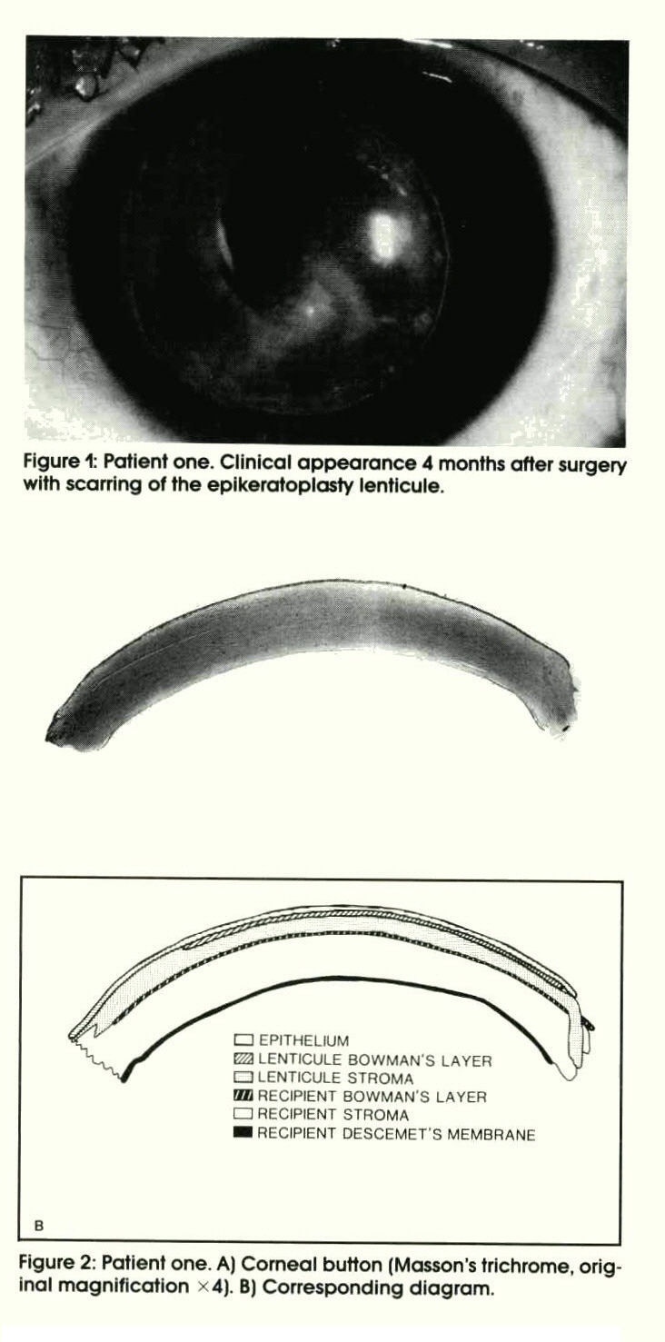 Figure 1: Patient one. Clinical appearance 4 months after surgery with scarring of the epikeratoplasty lenticule.Figure 2: Patient one. A) Corneal button (Masson's trichrome, original magnification ? 4). B) Corresponding diagram.
