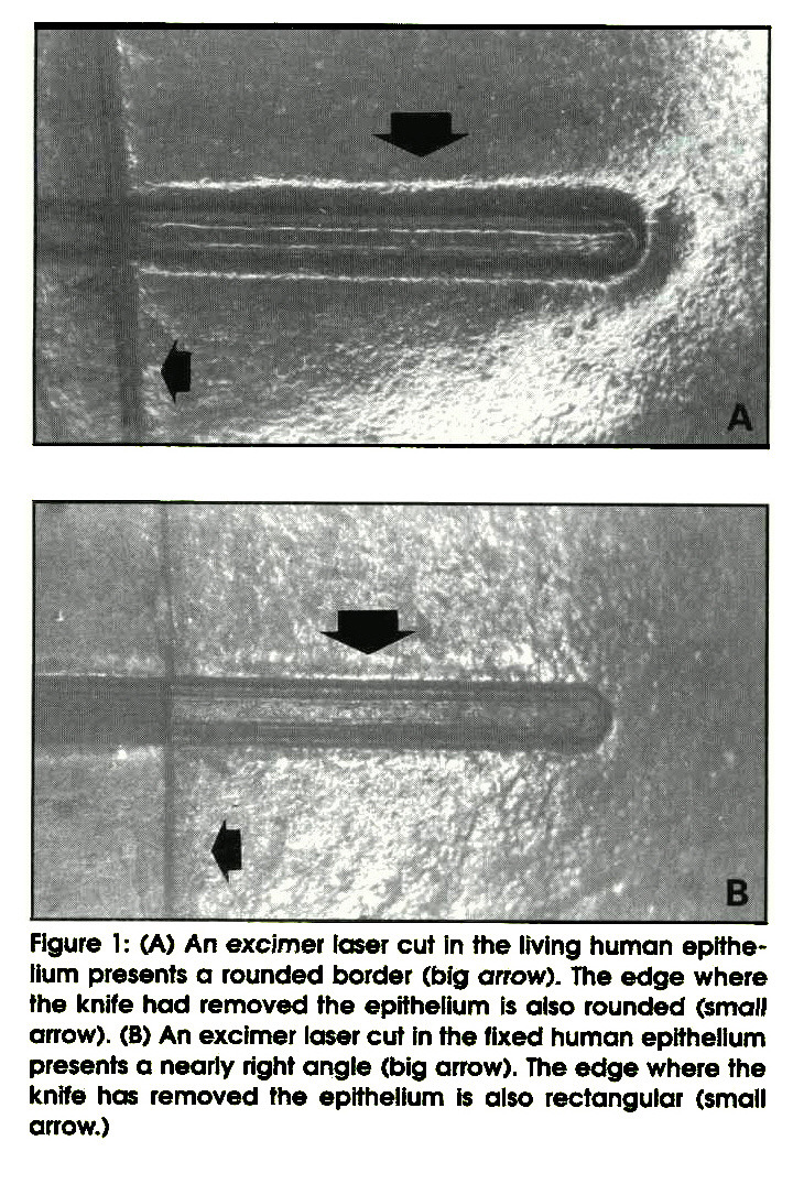 Figure 1: (A) An excimer laser cut In the living human epithelium presents a rounded border (big arrow). The edge where the knife had removed the epithelium Is also rounded (small arrow). (B) An excimer laser cut In the fixed human epithelium presents a nearly right angle (big arrow). The edge where the knife has removed the epithelium is also rectangular (small arrow.)