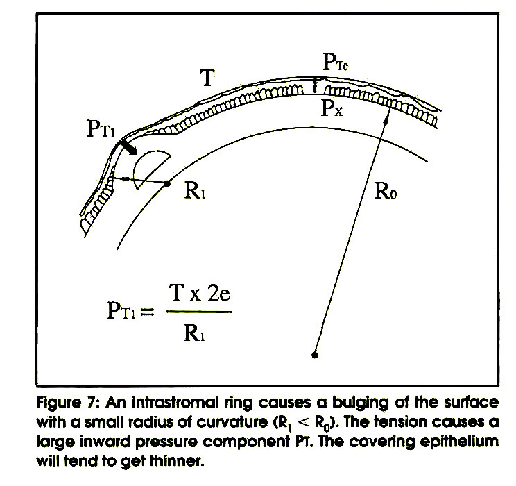 Figure 7: An intrastromal ring causes a bulging of the surface with a small radius of curvature (R1 < R0). The tension causes a large inward pressure component PT. The covering epithelium will tend to get thinner.