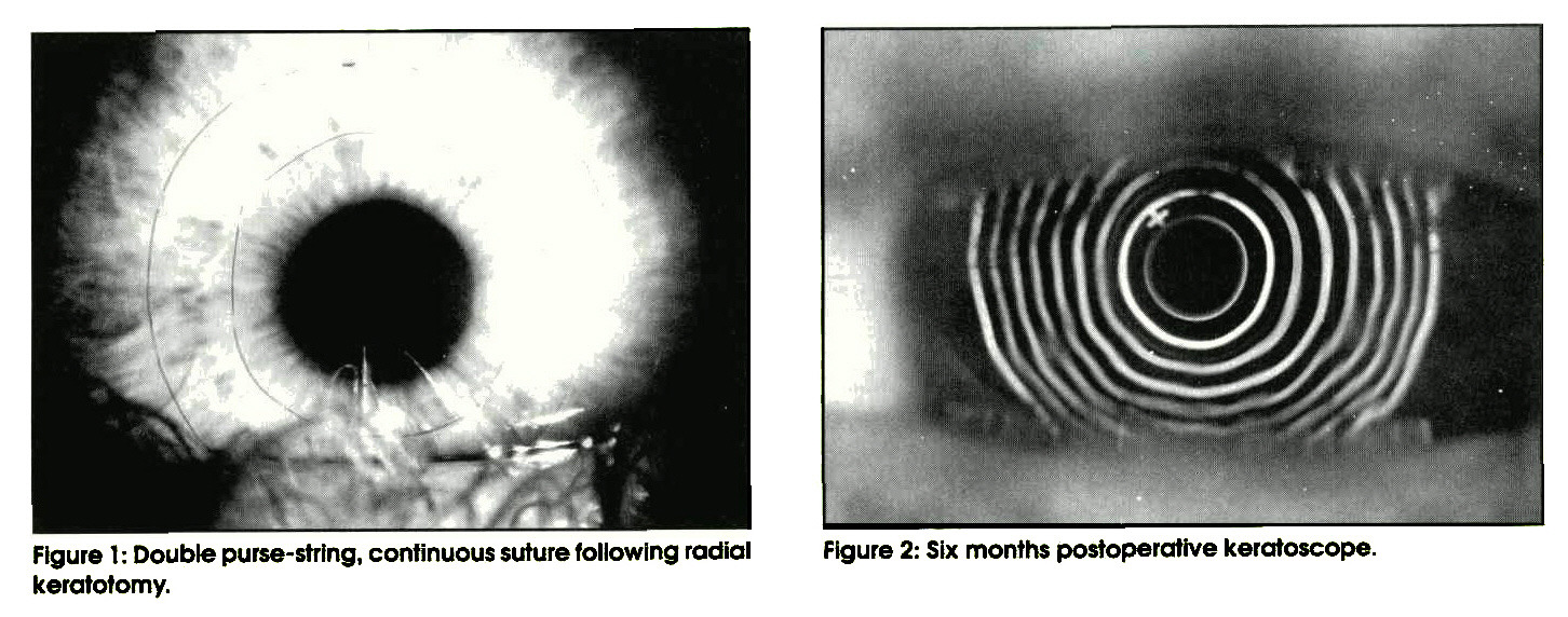 Figure 1 : Double purse-string, continuous suture following radial keratotomy.Figure 2: Six months postoperative keratoscope.