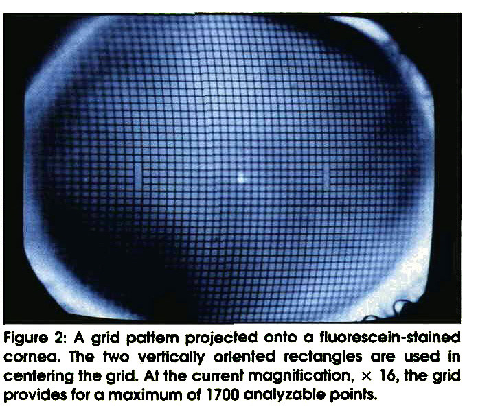 Figure 2: A grid pattern projected onto a fluorescein-stained cornea. The two vertically oriented rectangles are used in centering the grid. At the current magnification, × 16, the grid provides for a maximum of 1700 analyzable points.