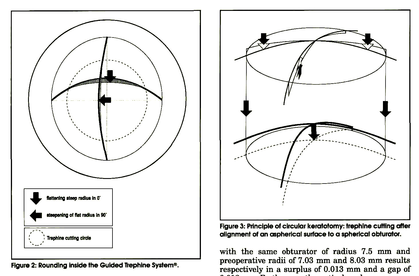 Figure 2: Rounding inside the Guided Trephine System®.Figure 3: Principle of circular keratotomy: trephine cutting after alignment of an aspherical surface to a spherical obturator.