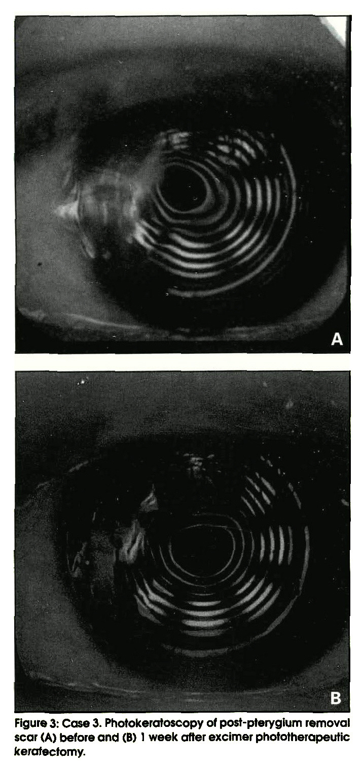Figure 3: Case 3. Photokeratoscopy of post-pterygium removal scar (A) before and (B) 1 week after excimer phototherapeutic keratectomy.