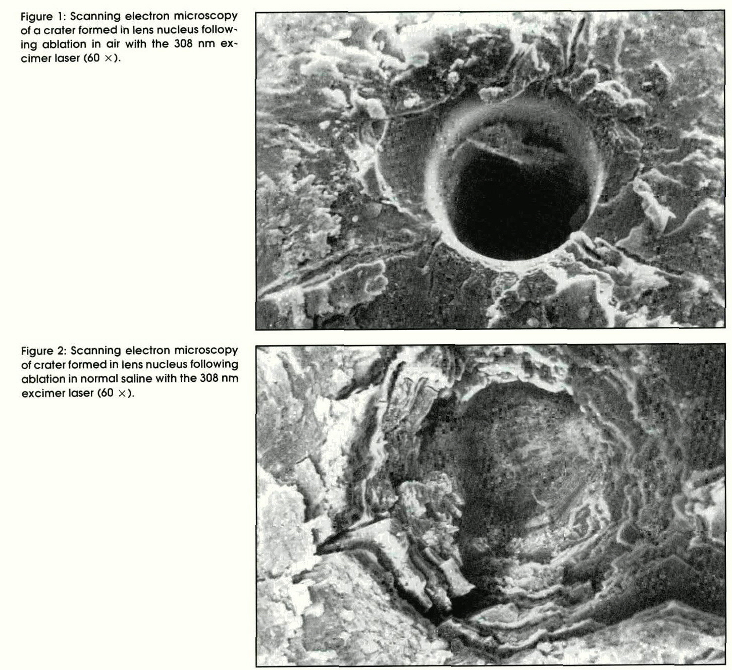 Figure 1: Scanning electron microscopy of a crater formed in lens nucleus following ablation in air with the 308 nm excimer laser (60 ×).Figure 2: Scanning electron microscopy of crater formed in lens nucleus following ablation in normal saline with the 308 nm excimer laser (60 ×).