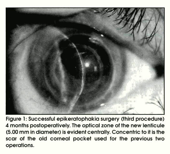 Figure 1 : Successful epikeratophakia surgery (third procedure) 4 months postoperatively. The optical zone of the new lenticule (5.00 mm in diameter) is evident centrally. Concentric to it is the scar of the old corneal pocket used for the previous two operations.