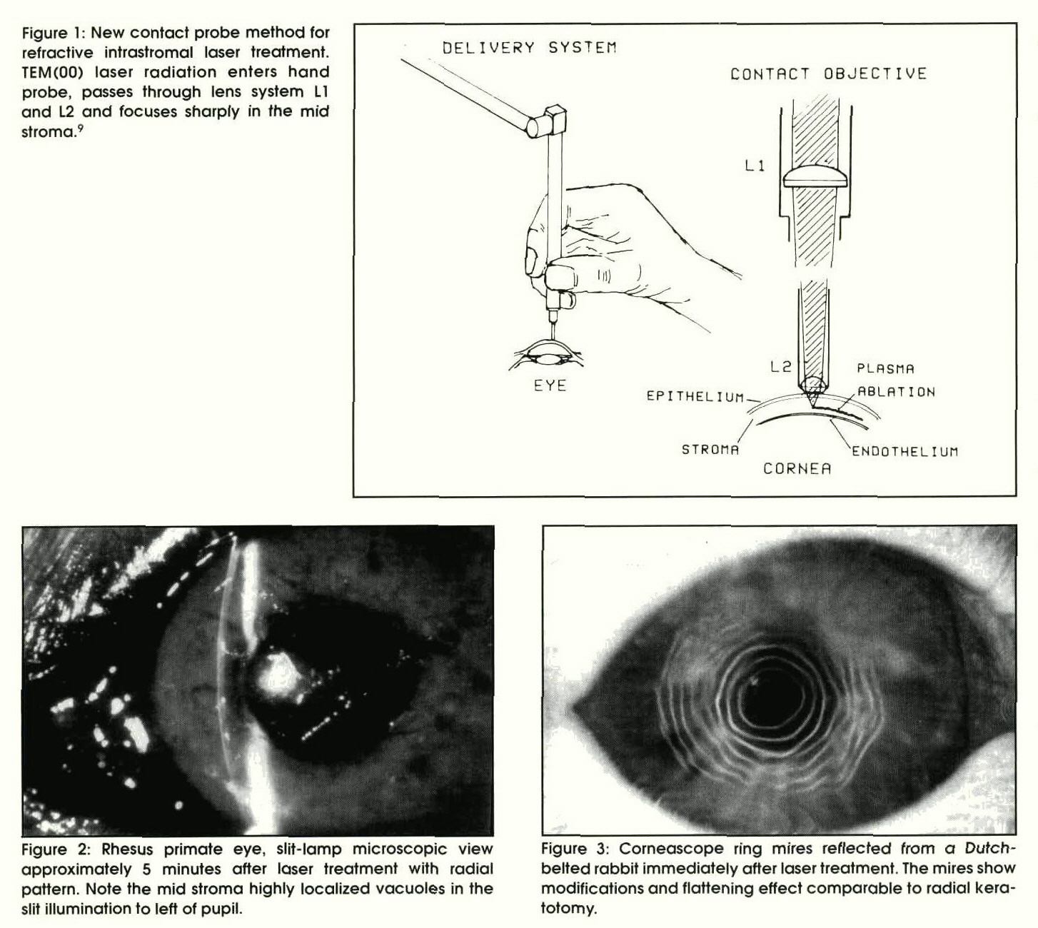 Figure 1 : New contact probe method for refractive intrastromal laser treatment. TEM(OO) laser radiation enters hand probe, passes through lens system Ll and L2 and focuses sharply in the mid stroma.9Figure 2: Rhesus primate eye, slit-lamp microscopic view approximately 5 minutes after laser treatment with radial pattern. Note the mid stroma highly localized vacuoles in the slit illumination to left of pupil.Figure 3: Corneascope ring mires reflected from a Dutchbelted rabbit immediately after laser treatment. The mires show modifications and flattening effect comparable to radial keratotomy.