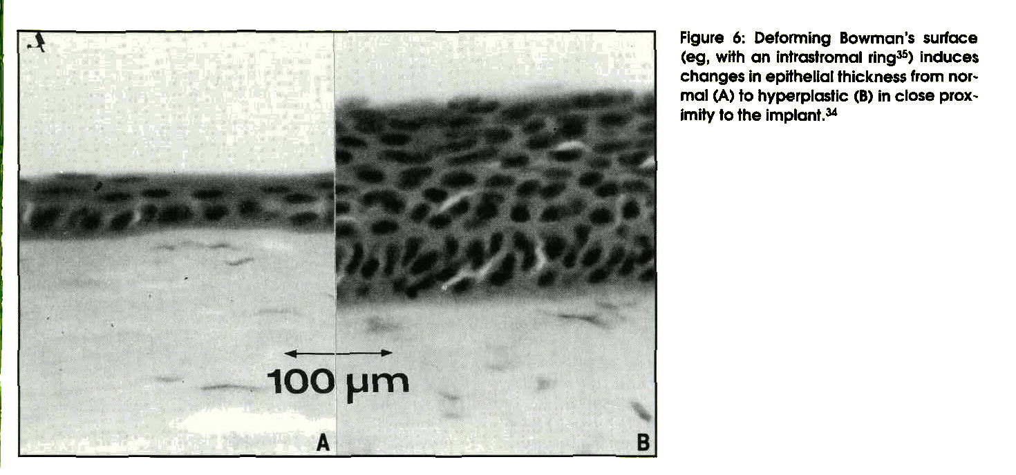 Figure 6: Deforming Bowman's surface (eg, with an intrastromal ring35) induces changes in epithelial thickness from normal (A) to hyperplastic (B) in close proximity to the implant.34
