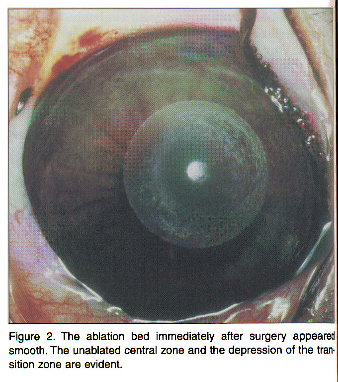 Figure 2. The ablation bed immediately after surgery appeared smooth. The unablated central zone and the depression of the transition zone are evident.