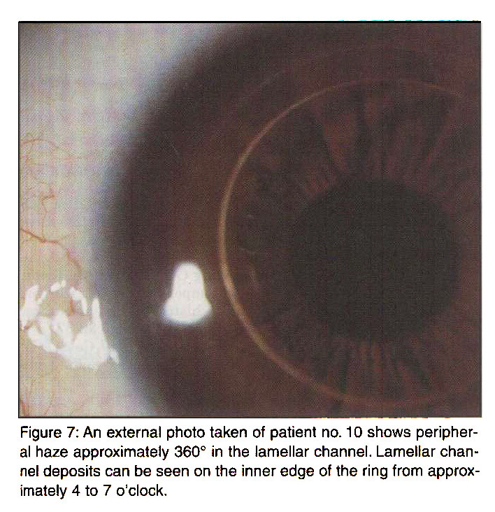Figure 7: An external photo taken of patient no. 10 shows peripheral haze approximately 360° in the lamellar channel. Lamellar channel deposits can be seen on the inner edge of the ring from approximately 4 to 7 o'clock.