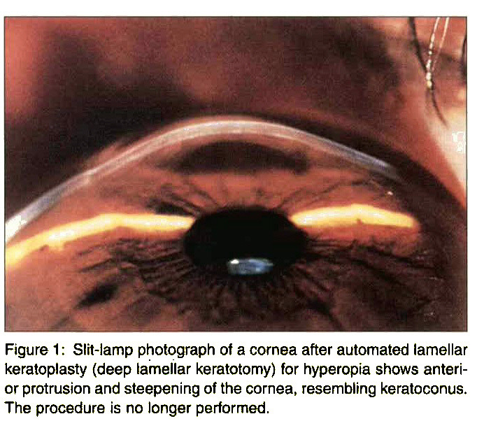 Figure 1 : Slit-lamp photograph of a cornea after automated lamellar keratoplasty (deep lamellar keratotomy) for hyperopia shows anterior protrusion and steepening of the cornea, resembling keratoconus. The procedure is no longer performed.