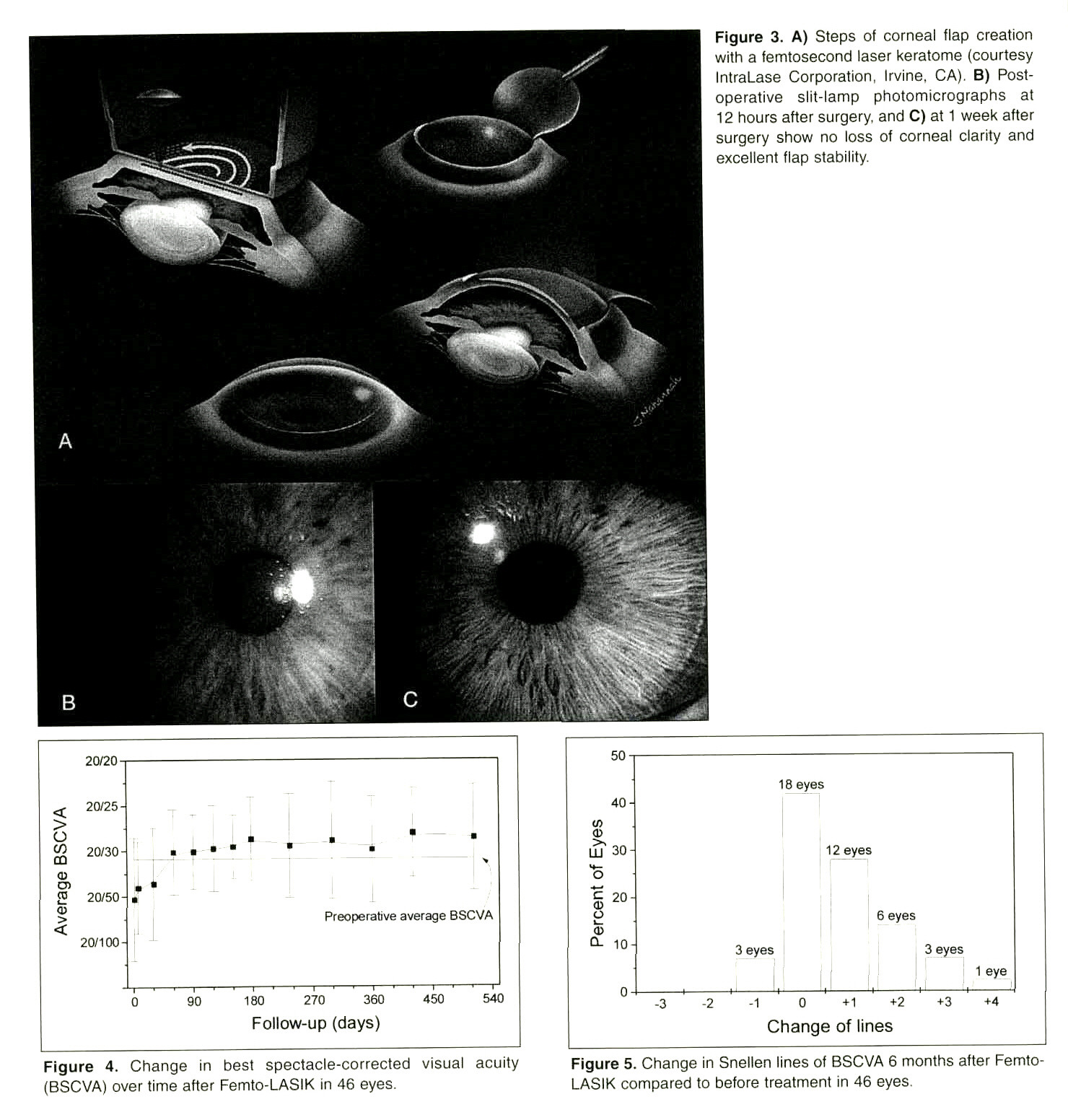 Figure 3. A) Steps of corneal flap creation with a femtosecond laser keratome (courtesy IntraLase Corporation, Irvine, CA). B) Postoperative slit-lamp photomicrographs at 12 hours after surgery, and C) at 1 week after surgery show no loss of corneal clarity and excellent flap stability.Figure 4. Change in best spectacle-corrected visual acuity (BSCVA) over time after Femto-LASIK in 46 eyes.Figure 5. Change in Snellen lines of BSCVA 6 months after FemtoLASIK compared to before treatment in 46 eyes.