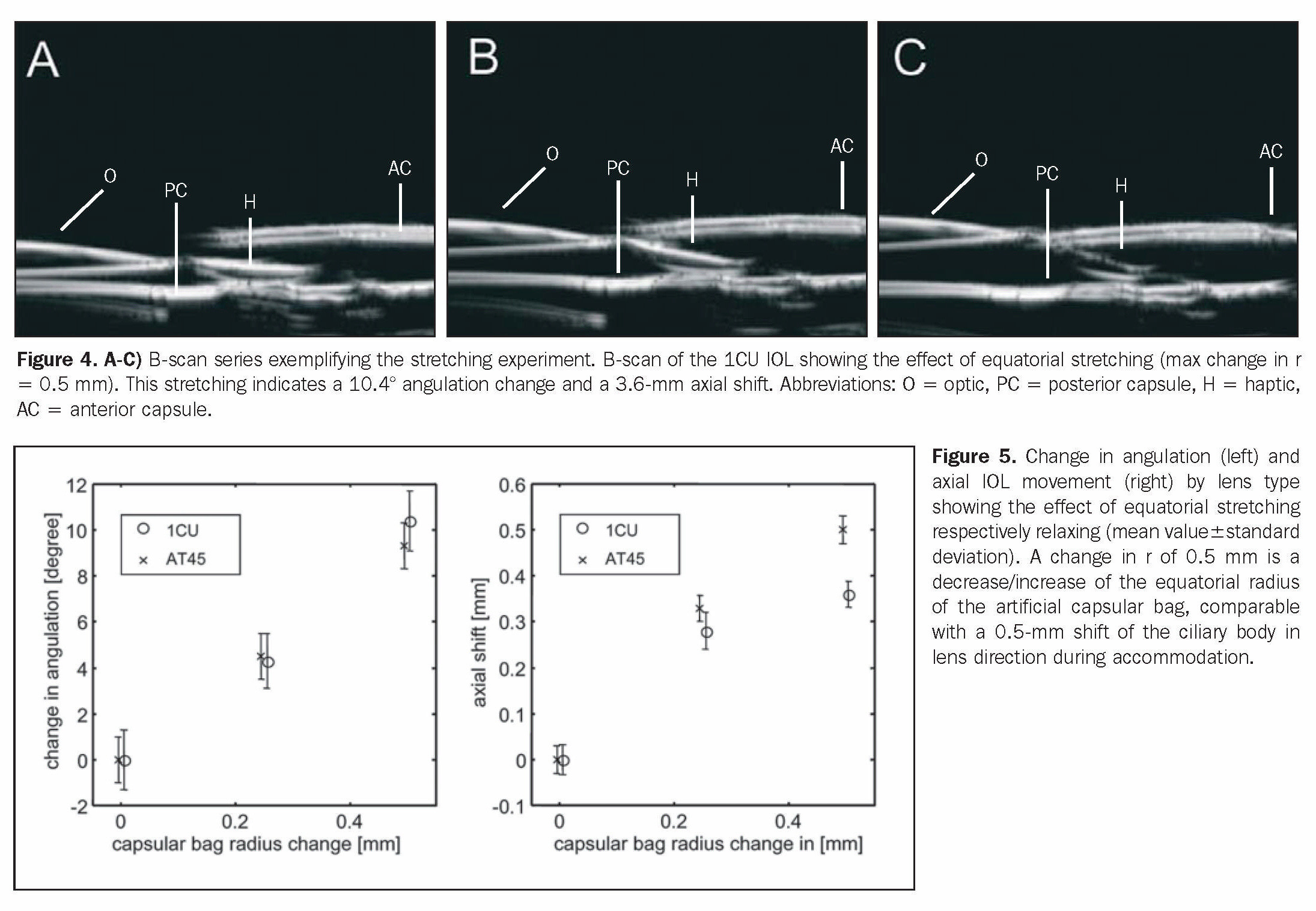 Figure 4. A-C) B-scan series exemplifying the stretching experiment. B-scan of the ICU IOL showing the effect of equatorial stretching (max change in r = 0.5 mm). This stretching indicates a 10.4° angulation change and a 3.6-mm axial shift. Abbreviations: O = optic, PC = posterior capsule, H = haptic, AC = anterior capsule.Figure 5. Change in angulation (left) and axial IOL movement (right) by lens type showing the effect of equatorial stretching respectively relaxing (mean value±standard deviation). A change in r of 0.5 mm is a decrease/increase of the equatorial radius of the artificial capsular bag, comparable with a 0.5-mm shift of the ciliary body in lens direction during accommodation.