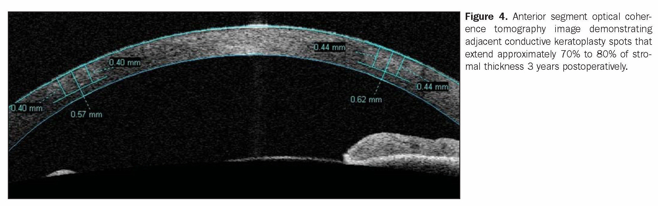 Figure 4. Anterior segment optical coherence tomography image demonstrating adjacent conductive keratoplasty spots that extend approximately 70% to 80% of stromal thickness 3 years postoperatively.