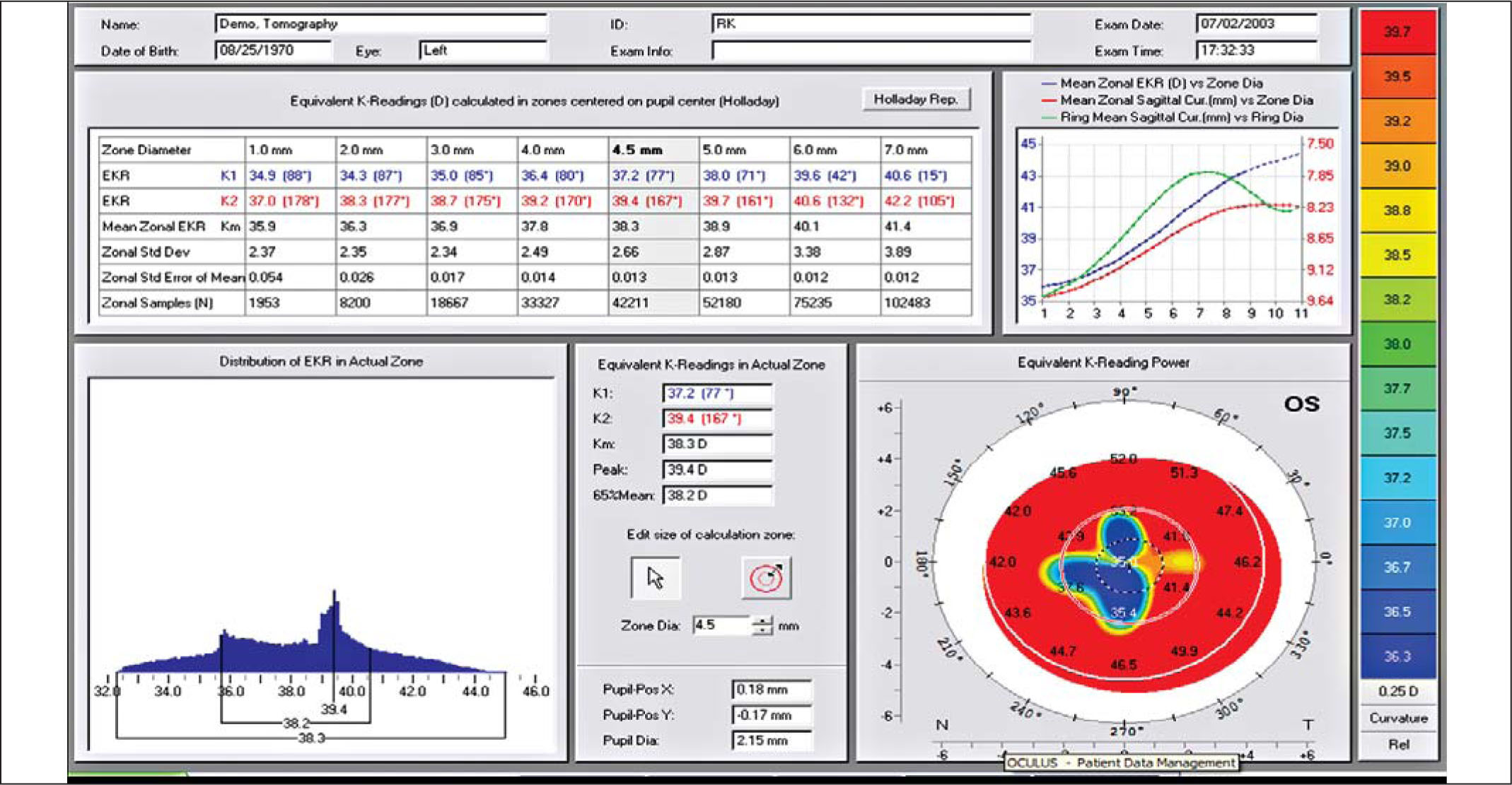 Detailed Report of the Equivalent K-Reading (EKR) for an Example Radial Keratotomy (RK) Eye. The Mean Zonal Value Is Shown in the Table in the Gray Shaded Central Column Under the 4.5-mm Zone. There Are ~42,000 Points Used to Determine the Mean Value. The Frequency Distribution of Powers over the 4.5-mm Zone Is Shown in the Lower Left Hand Corner. Note the Wide Variation in the Distribution EKR Values (12.70 D, 32.30 to 45.00 D) over the 4.5-mm Zone. The Mean Zonal EKR (D) (dashed Blue Line) Versus the Zone Diameter Is Shown Graphically in the Upper Right Hand Corner.