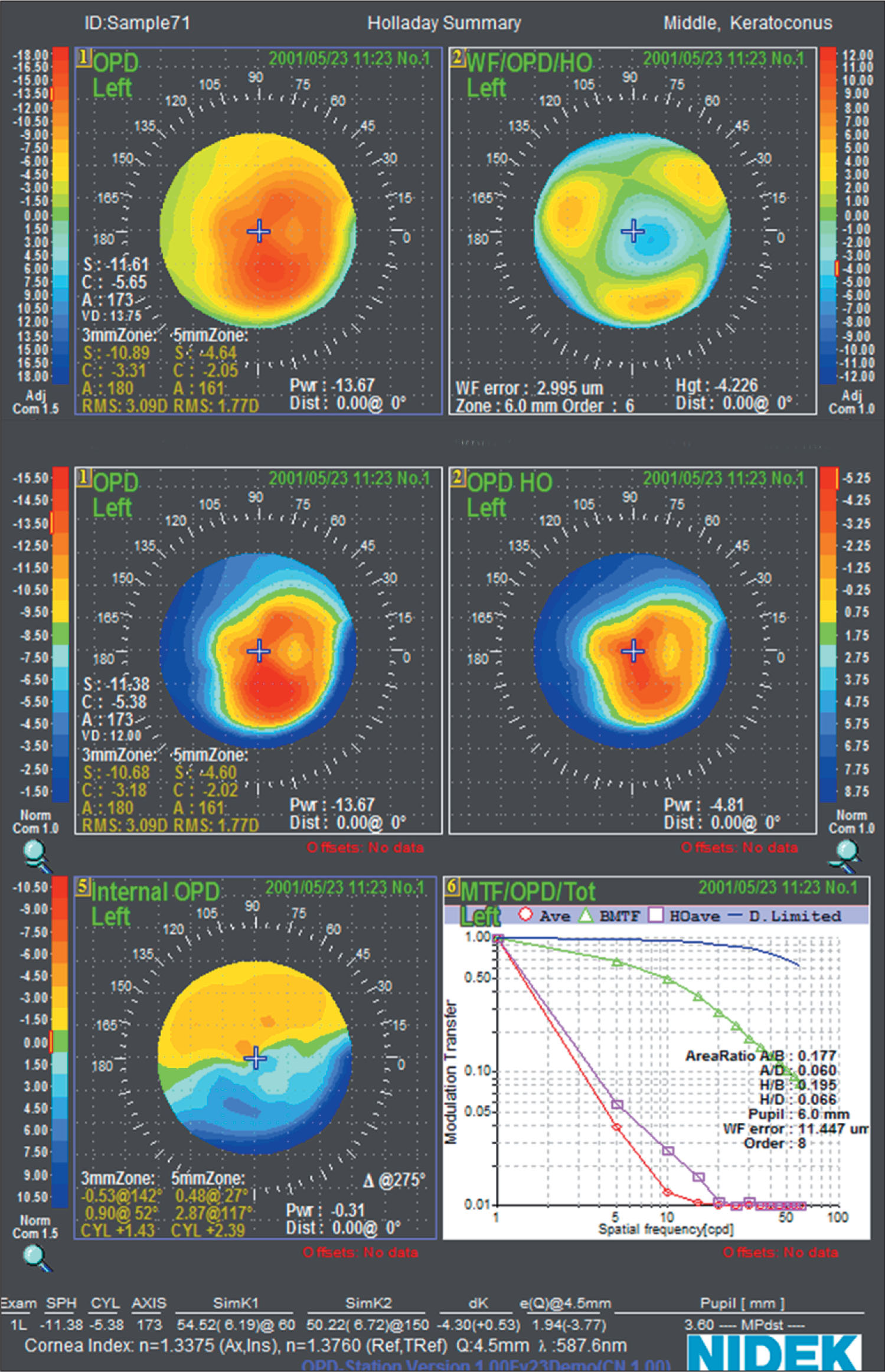 Wavefront Measurement of an Eye with Keratoconus. OPD, OPD Higher Order (HO), and Internal OPD Maps Are Refractive Wavefront Maps Plotted in Diopters. The Wavefront HO Map Is a Wavefront Map Plotted in Microns. MTF = Modulation Transfer Function