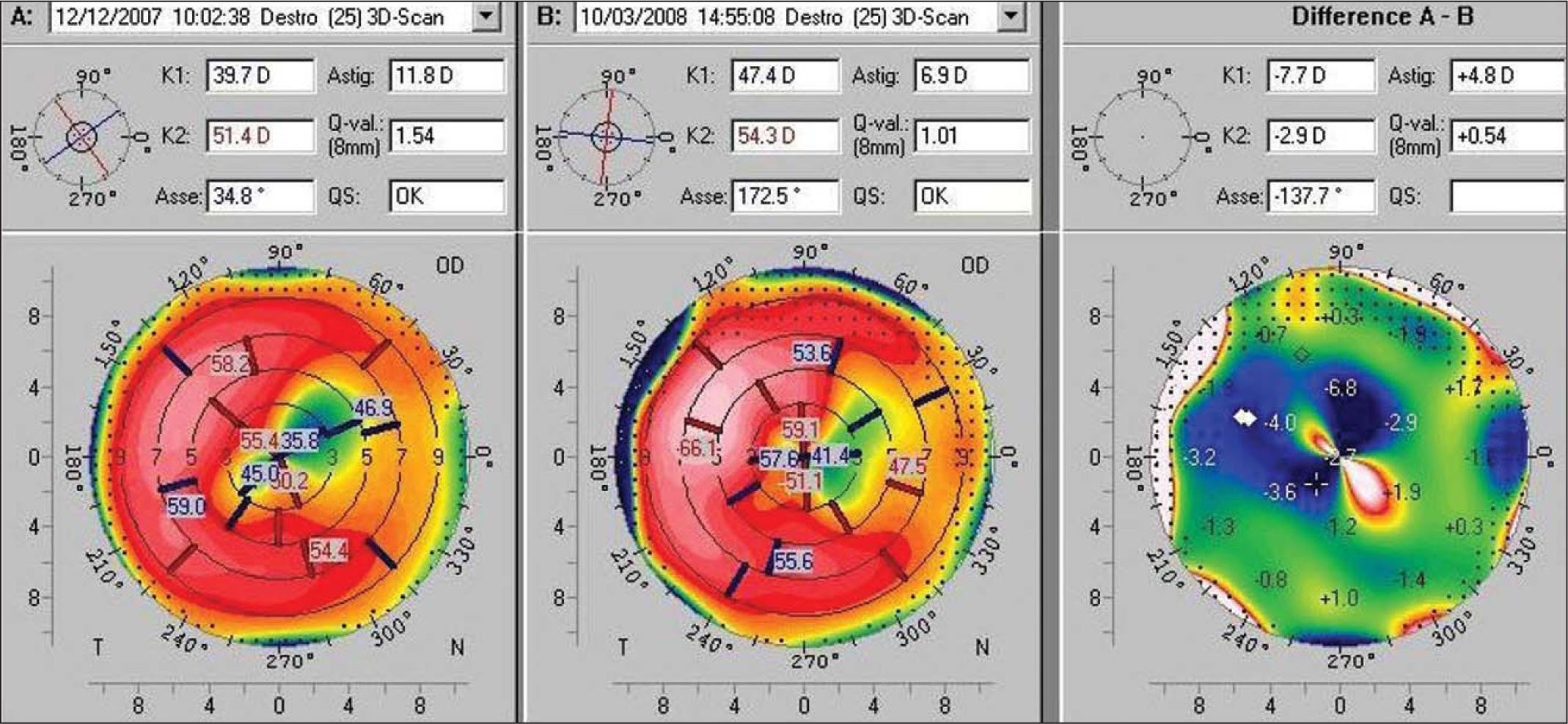 Comparison of A) Preoperative and B) 3-Month Postoperative Keratometric and Sagittal Anterior Maps Taken by the Pentacam (Oculus Optikgeräte). The Panel on the Right Shows the Difference Calculated for Each Map Between A Minus B.