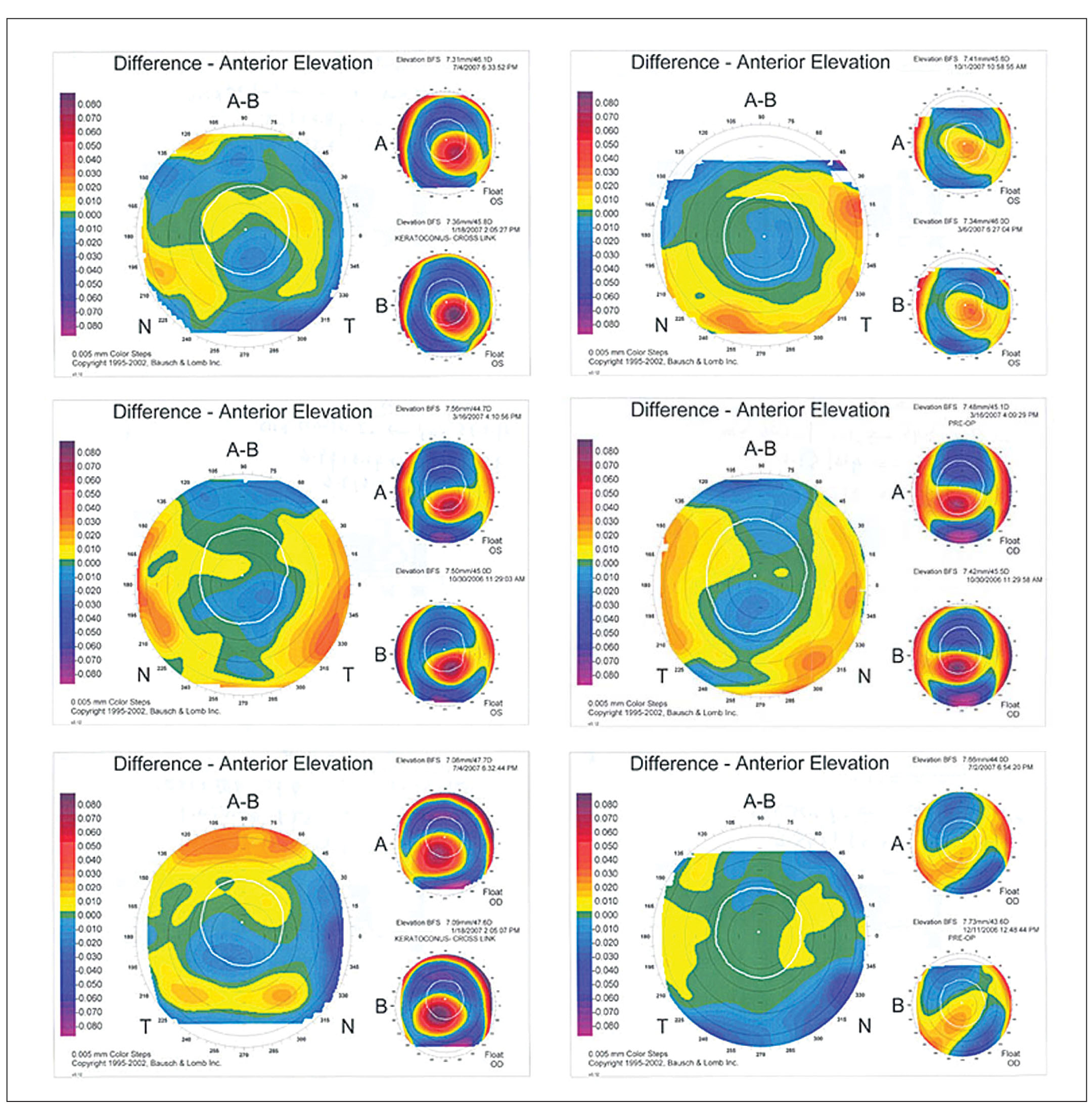 Orbscan II Anterior Elevation (pre- to Postoperative) Difference Maps in Six Eyes Showing Pattern 1 Change—Paracentral Steepening and Central Flattening.