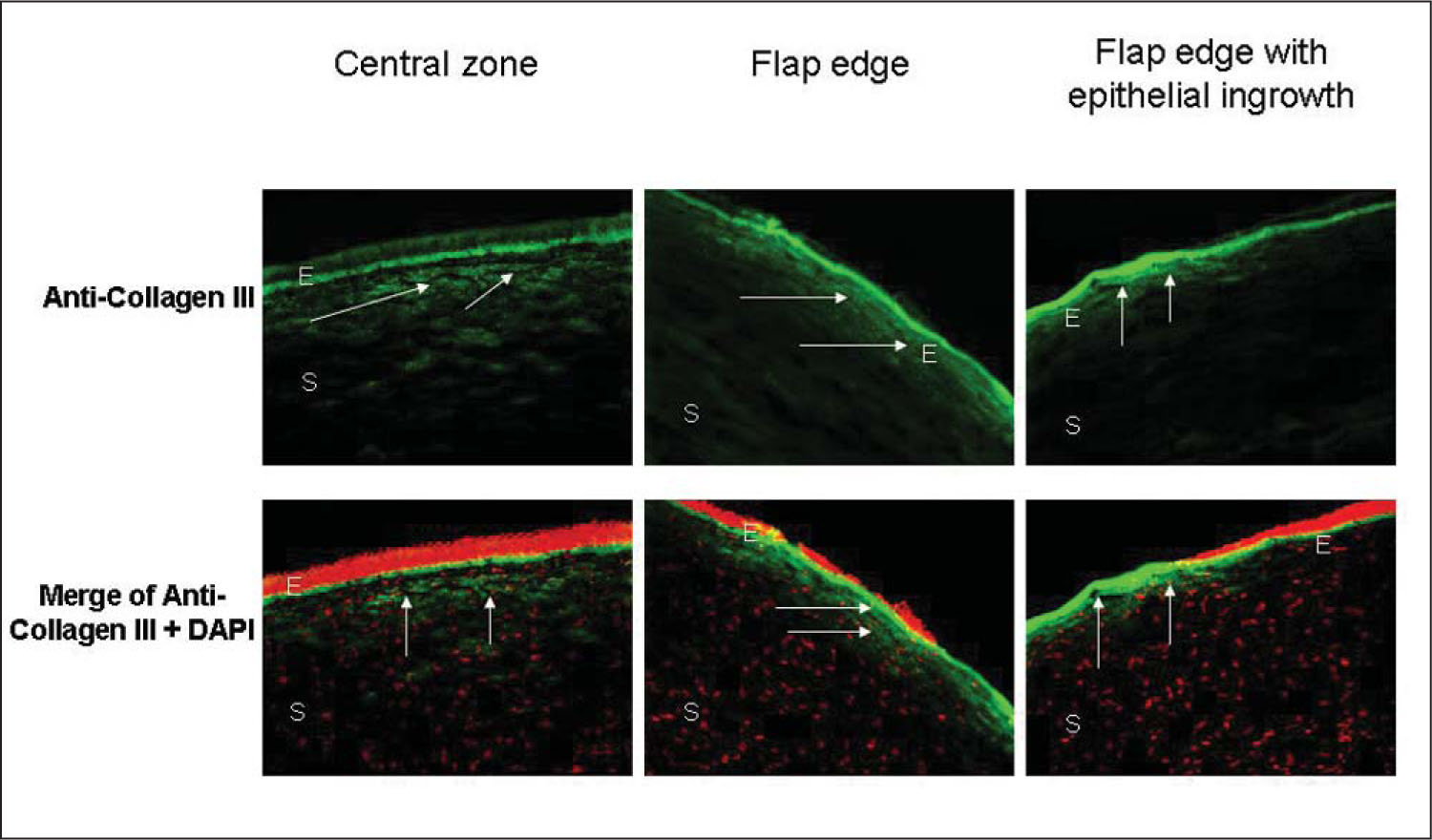 Low expression of collagen III (arrows) in ectatic human corneas after LASIK surgery is observed at the central zone (left panels) and flap edge (middle panels) of corneas with subtle flap edges. Significant expression of collagen III (arrows) was observed in the peripheral fibrotic scar region (right panels) in the cornea with epithelial ingrowth. 4′6-diamidino-2-phenylindole (DAPI) was used for nuclear counterstaining (red cells). E=epithelium, S=stroma
