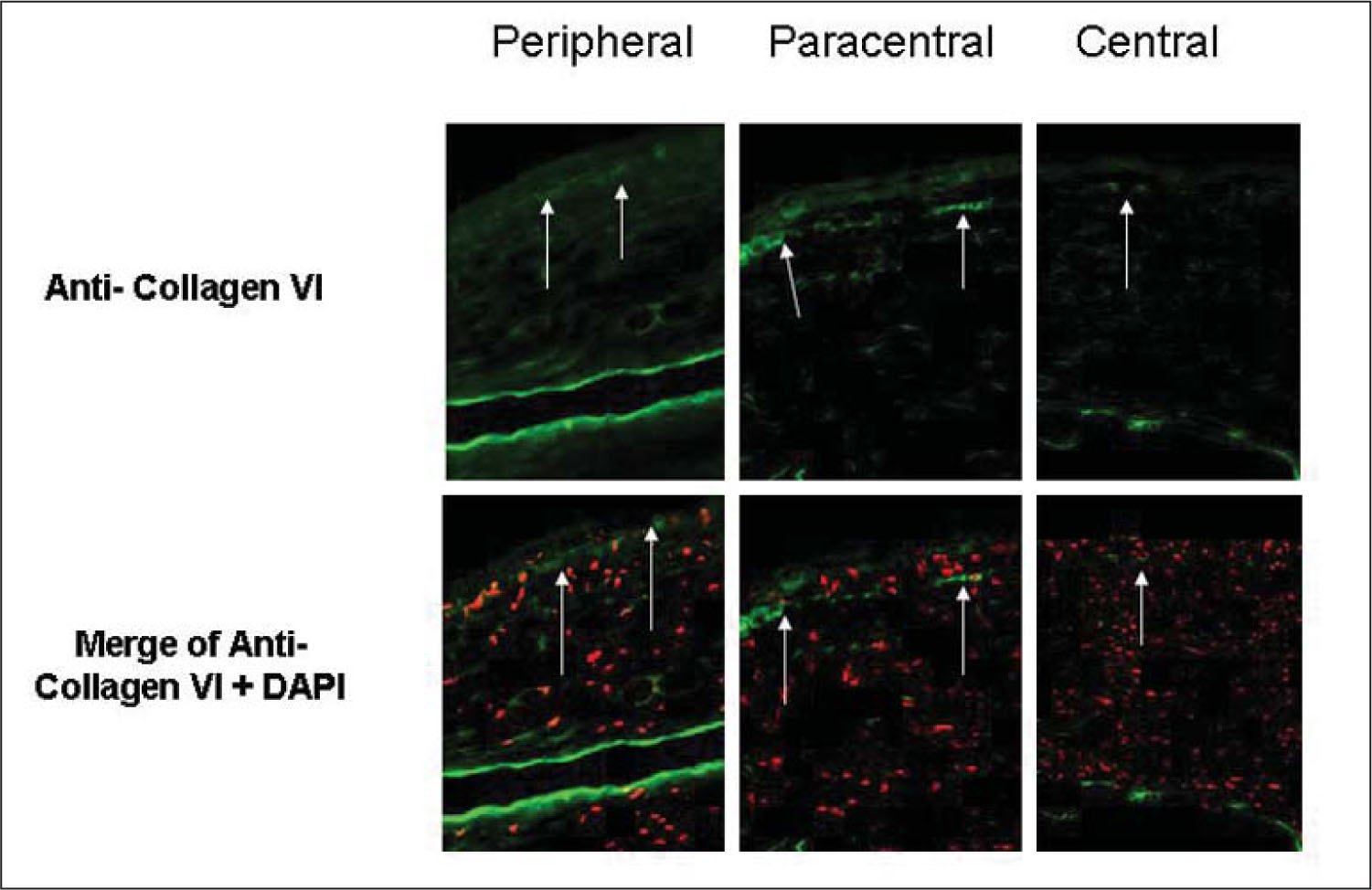 Expression of collagen VI (arrows) was observed in the interface of all samples in the paracentral and peripheral wound margin and less intensely in the central cornea (upper panels). 4′6-diamidino-2-phenylindole (DAPI) was used for nuclear counterstaining (red cells) (lower panels).