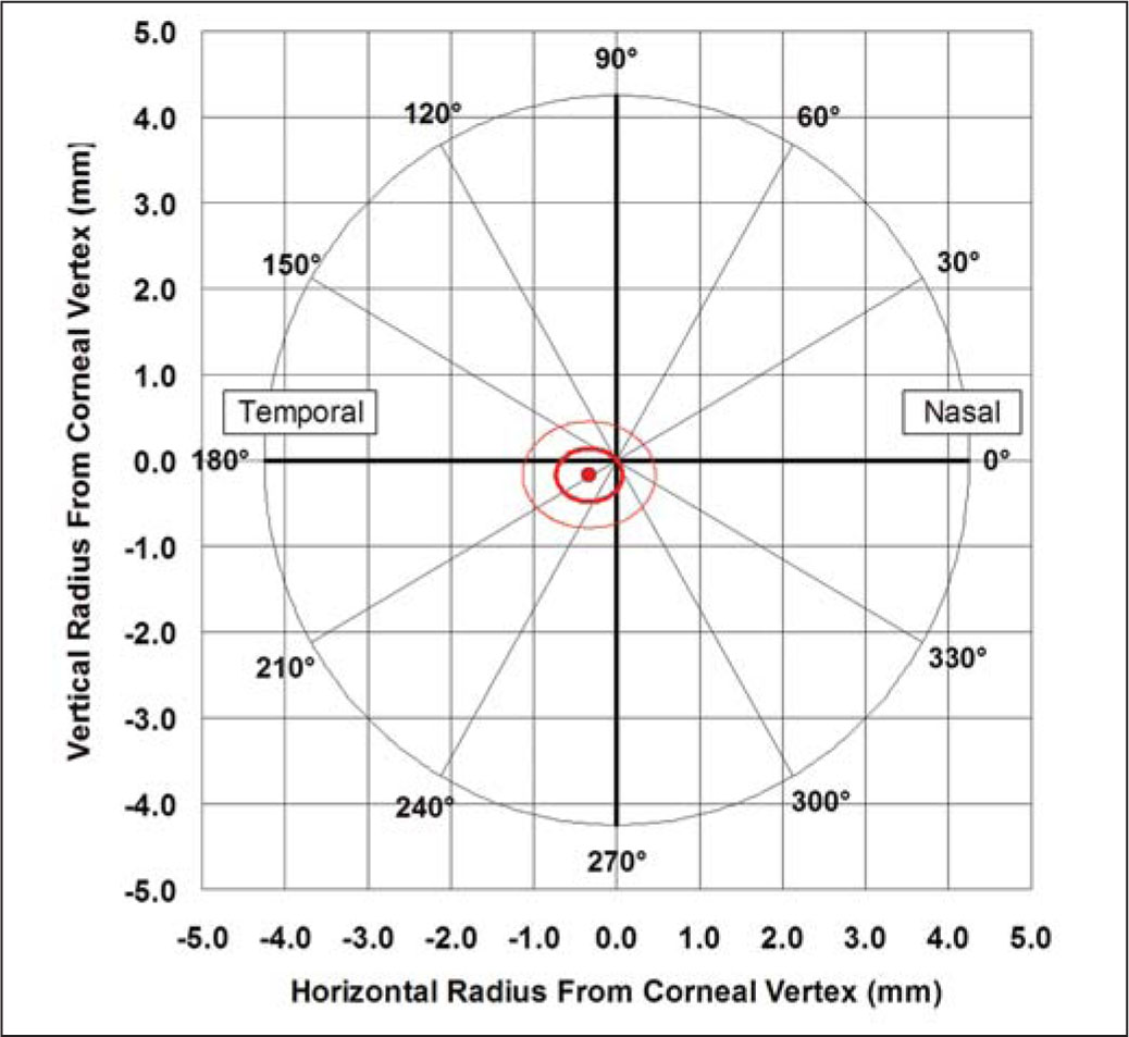 Average Location of the Thinnest Stroma Within the Central 5 mm of the Cornea. The Red Dot Represents the Average Location of the Thinnest Stroma for All Eyes Tested. The Thick Red Ellipse Represents One Standard Deviation in the x- and y-Directions and the Thin Red Ellipse Represents Two Standard Deviations in the x- and y-Directions. A Cartesian 1-mm Grid Is Superimposed with the Origin at the Corneal Vertex. Positive x Values Represent the Nasal Stroma and Negative Values Represent the Temporal Stroma. Positive y Values Represent the Superior Stroma and Negative Values Represent the Inferior Stroma.