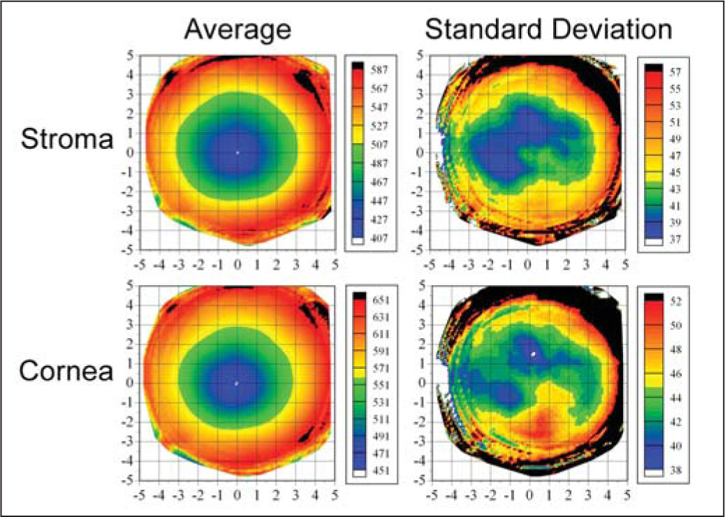 Topographic Maps of the Average and Standard Deviation of Stromal Thickness and Total Corneal Thickness for the Population Centered on the Thinnest Point. The Color Scale Represents the Thickness in Microns. A Cartesian 1-mm Grid Is Superimposed with the Origin at the Thinnest Point. Both Maps Include All Eyes with Left Eyes Mirrored (positive x Values Represent the Nasal Cornea and Negative Values Represent the Temporal Cornea).