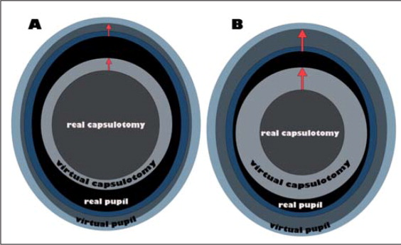 Distortion effect of A) myopic and B) hyperopic corneas. Red arrows show the magnification effect of the cornea depending on average keratometry values.