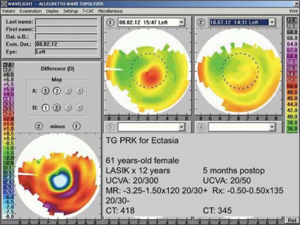 Topography-guided photorefractive keratectomy for postoperative LASIK ectasia.