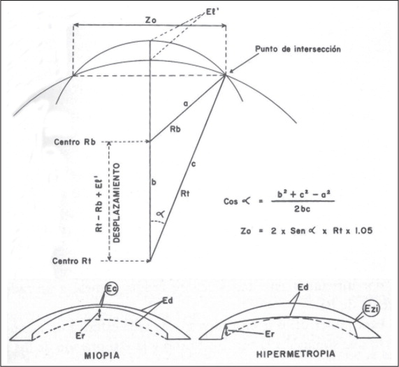 Trigonometric diagram that formed the basis of the calculations for Barraquer's Law of Thicknesses on which keratomileusis and all future corneal tissue removal/ablation procedures were based. The diagrams demonstrate the tissue that needs to be removed in a myopic (left) and hyperopic (right) correction. (Reprinted with permission from Barraquer JI. Queratomileusis y Queratofaquia. Bogota, Colombia: Instituto Barraquer de América; 1980:125. Copyright © 1980.)