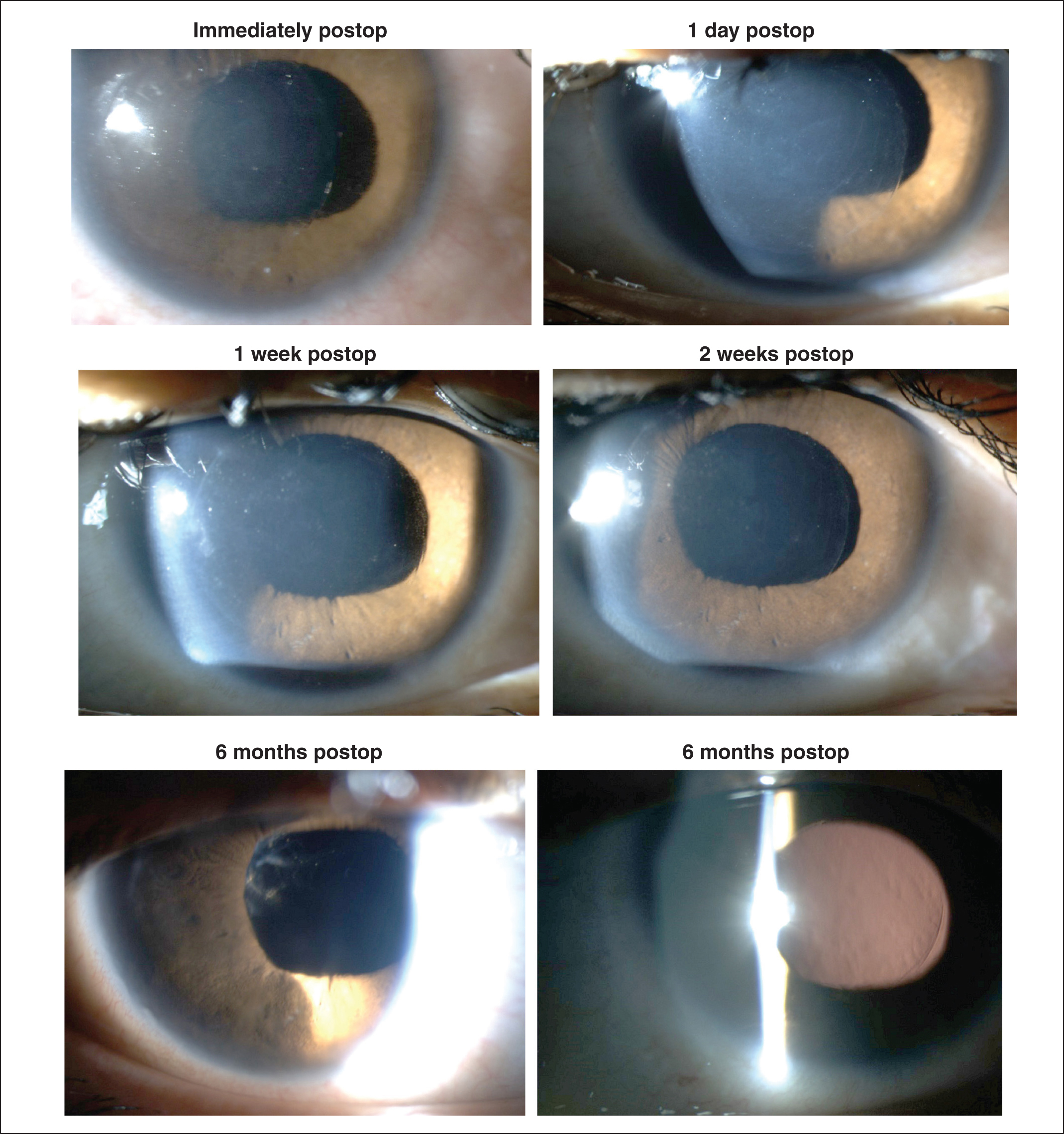 Slit-lamp photogaphs over the 6-month postoperative course after endokeratophakia showing that the cornea remained clear. The lenticule appears decentered with respect to the pupil because the pupil was irregular and eccentric, whereas the lenticule had been centered on the corneal vertex coincident with the axis of fixation.