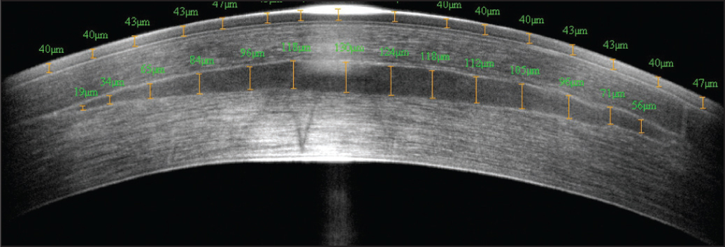 RTVue OCT (Optovue Inc. Fremont, CA) 6-mm diameter horizontal B-scan 6 months after endokeratophakia showing that the central thickness of the implanted lenticule was 130 μm, which was just 3 μm more than the intended lenticule thickness of 127 μm. The central epithelial thickness was 43 μm, indicating that there had likely been some epithelial thinning centrally to compensate for the increased curvature due to the implanted lenticule.