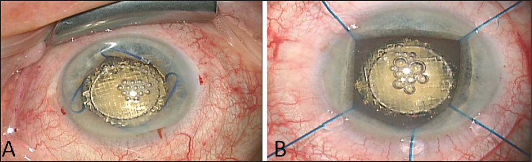 Picture taken through the operating microscope at the end of a successful laser treatment without ophthalmic viscosurgical device. (A) A Malyugin Ring (Microsurgical Technology, Redmond, WA) and (B) disposable iris retractors can be detected inside the anterior chamber.